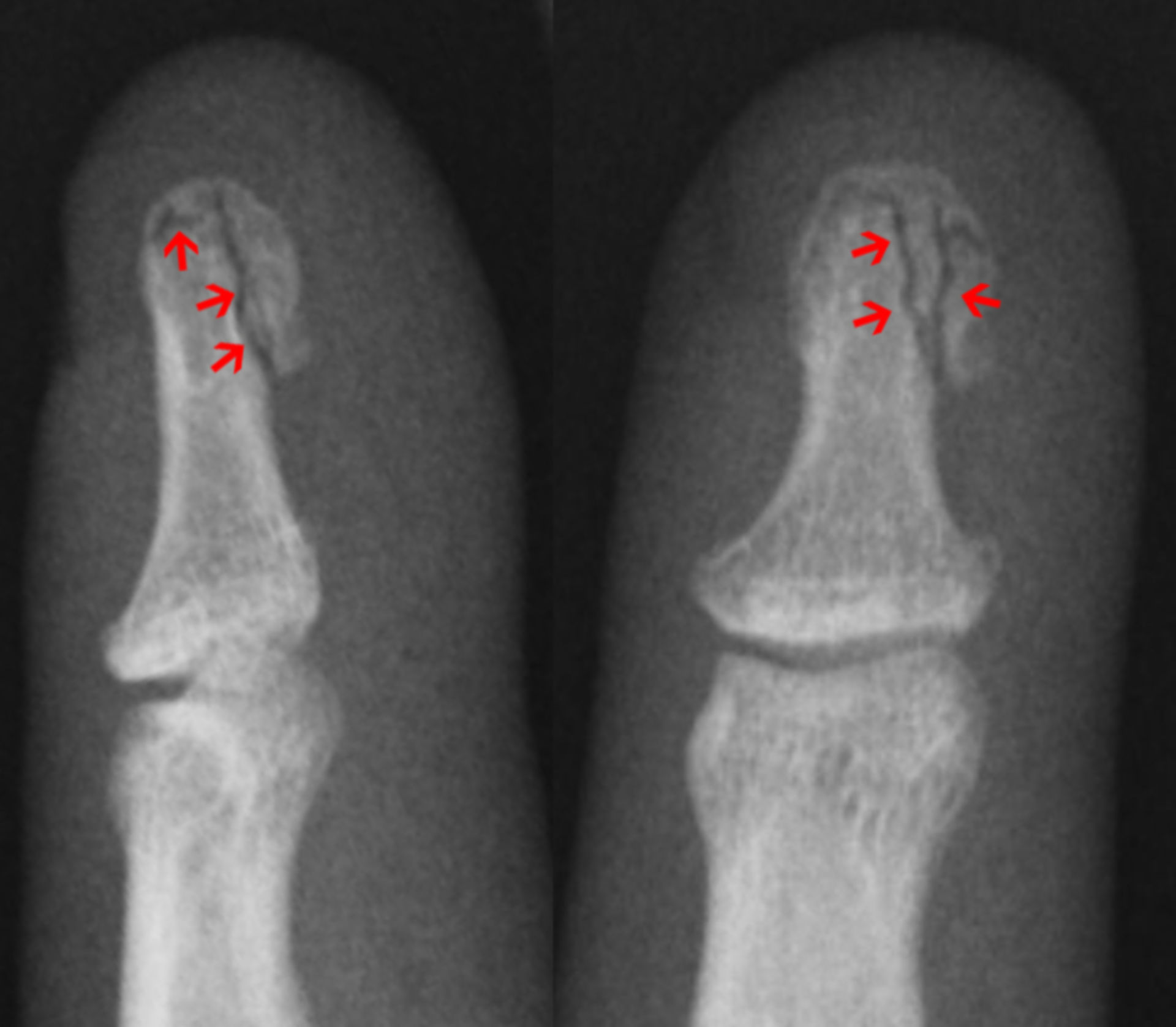 Fracture of the Nail Rim