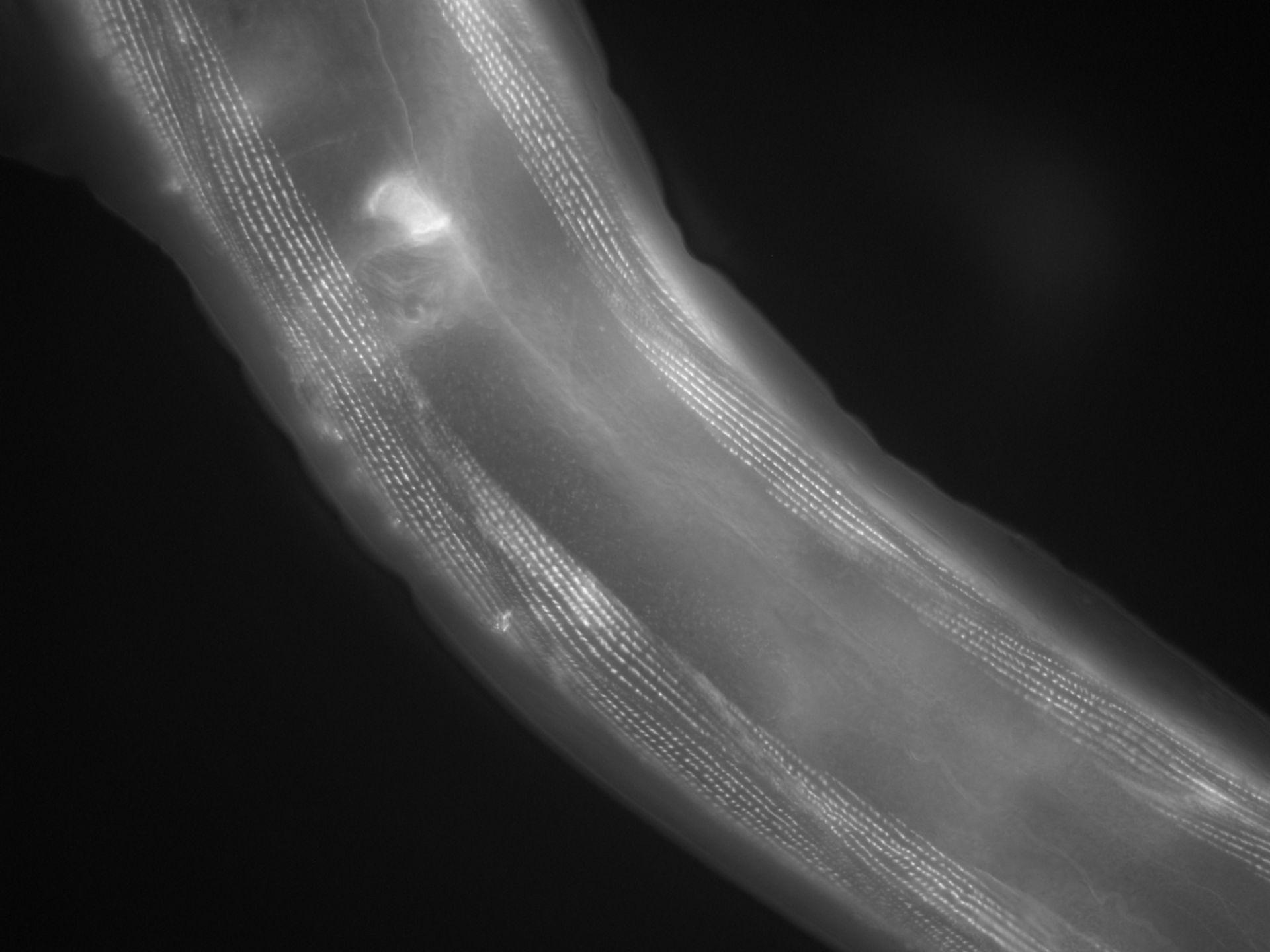 Caenorhabditis elegans (Actin filament) - CIL:1152