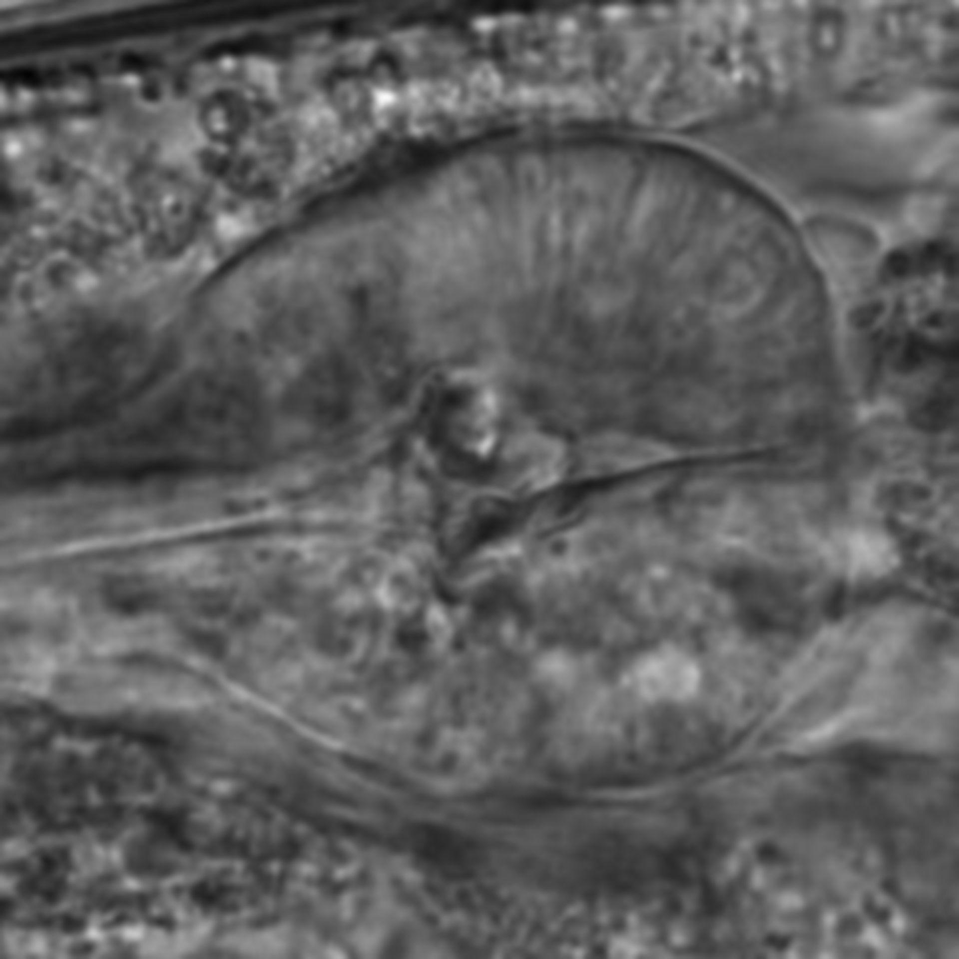 Caenorhabditis elegans - CIL:2141