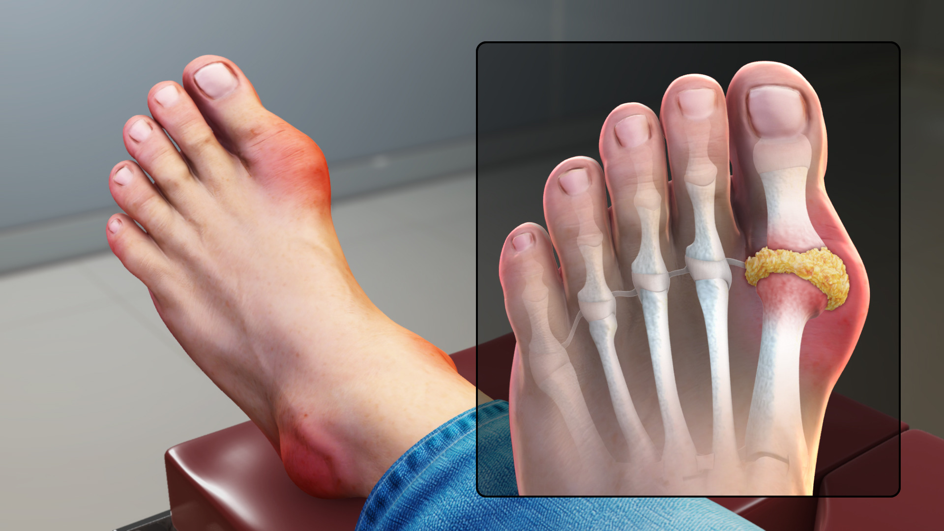Gout_Signs_and_Symptoms