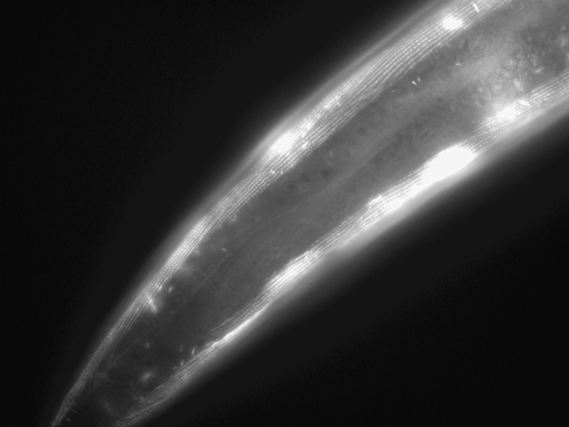 Caenorhabditis elegans (Actin filament) - CIL:1039