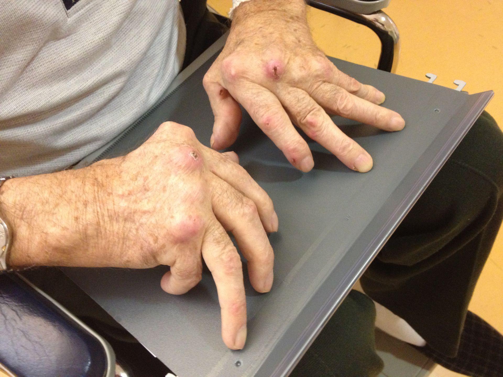 Cambios en las articulaciones en la artritis reumatoide