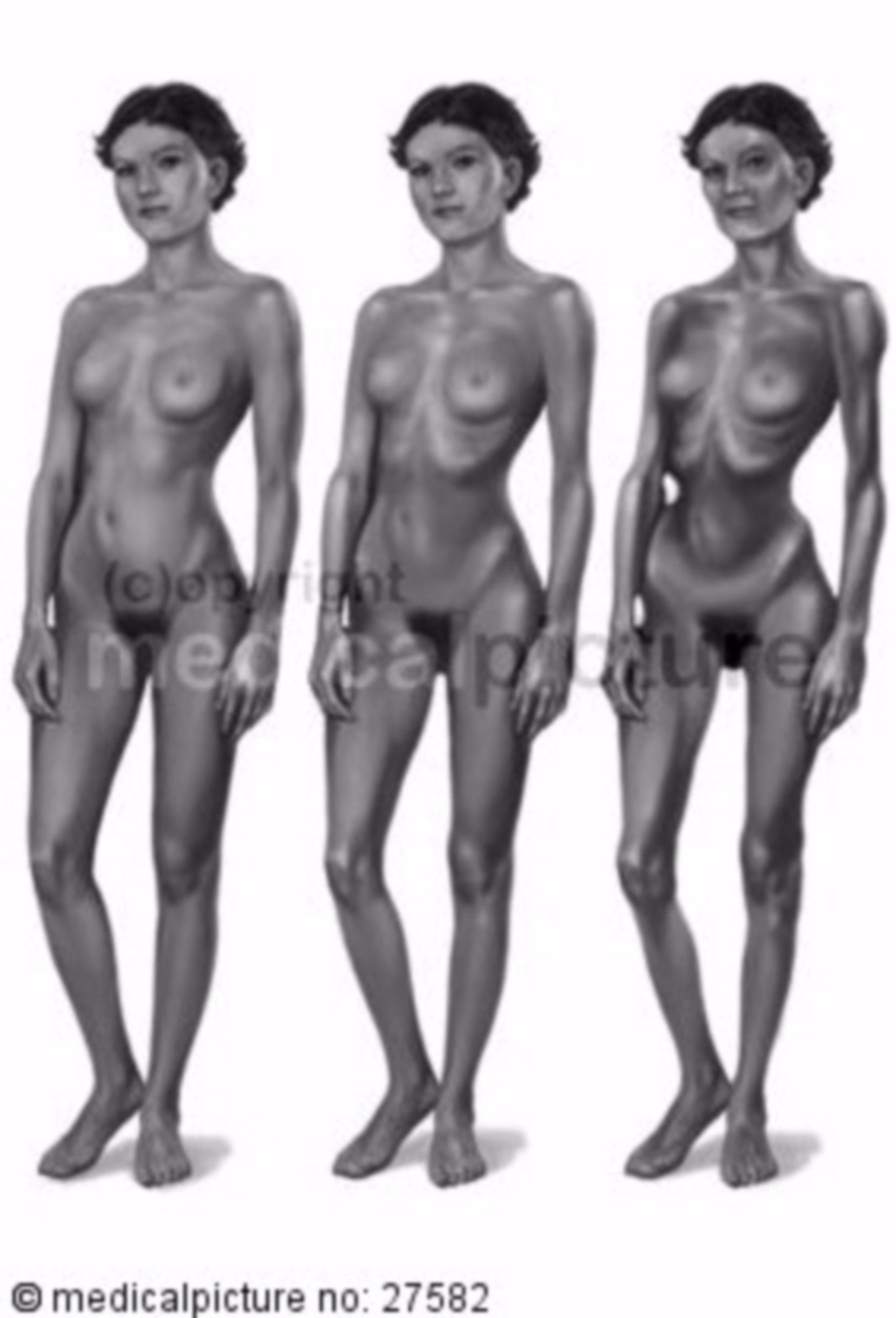 Anorexia, Development