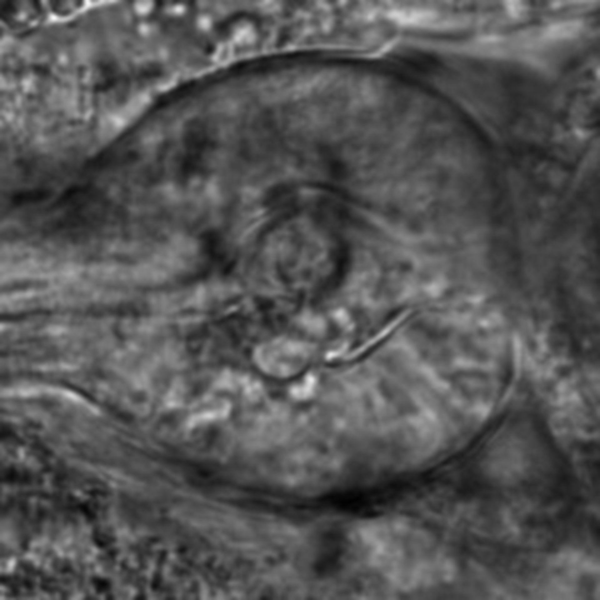 Caenorhabditis elegans - CIL:2772