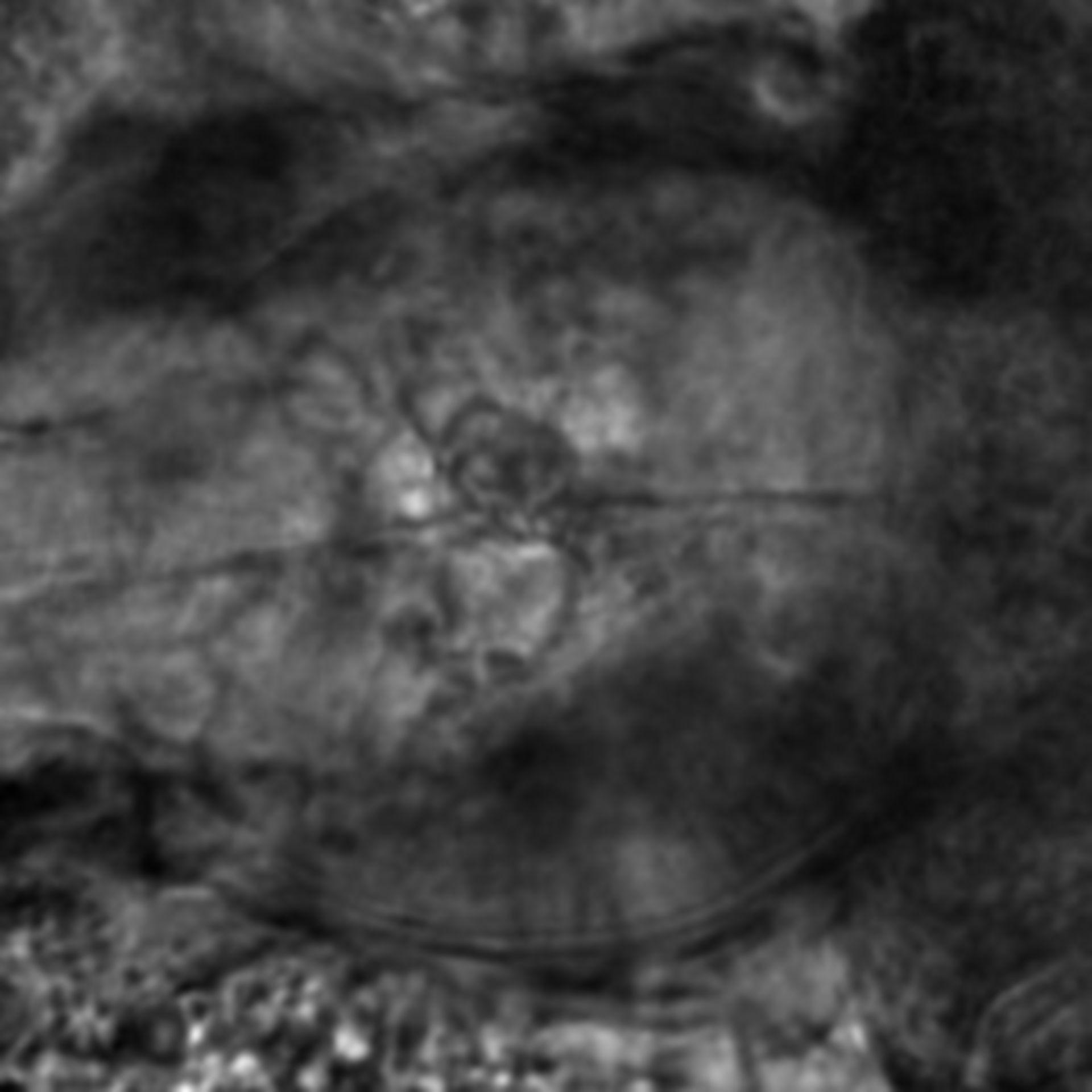 Caenorhabditis elegans - CIL:2722