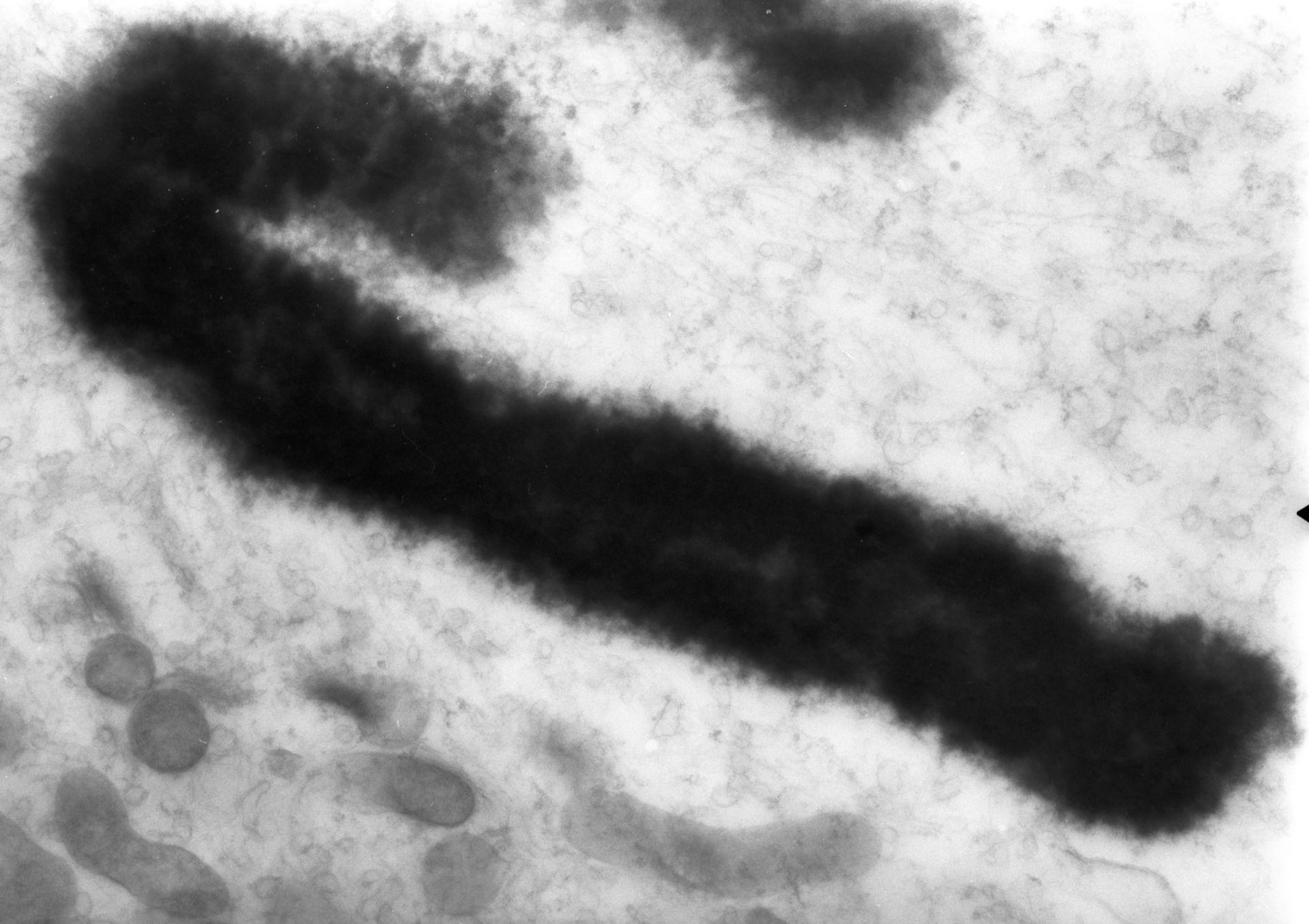 Haemanthus katharinae (Nuclear chromosome) - CIL:11913