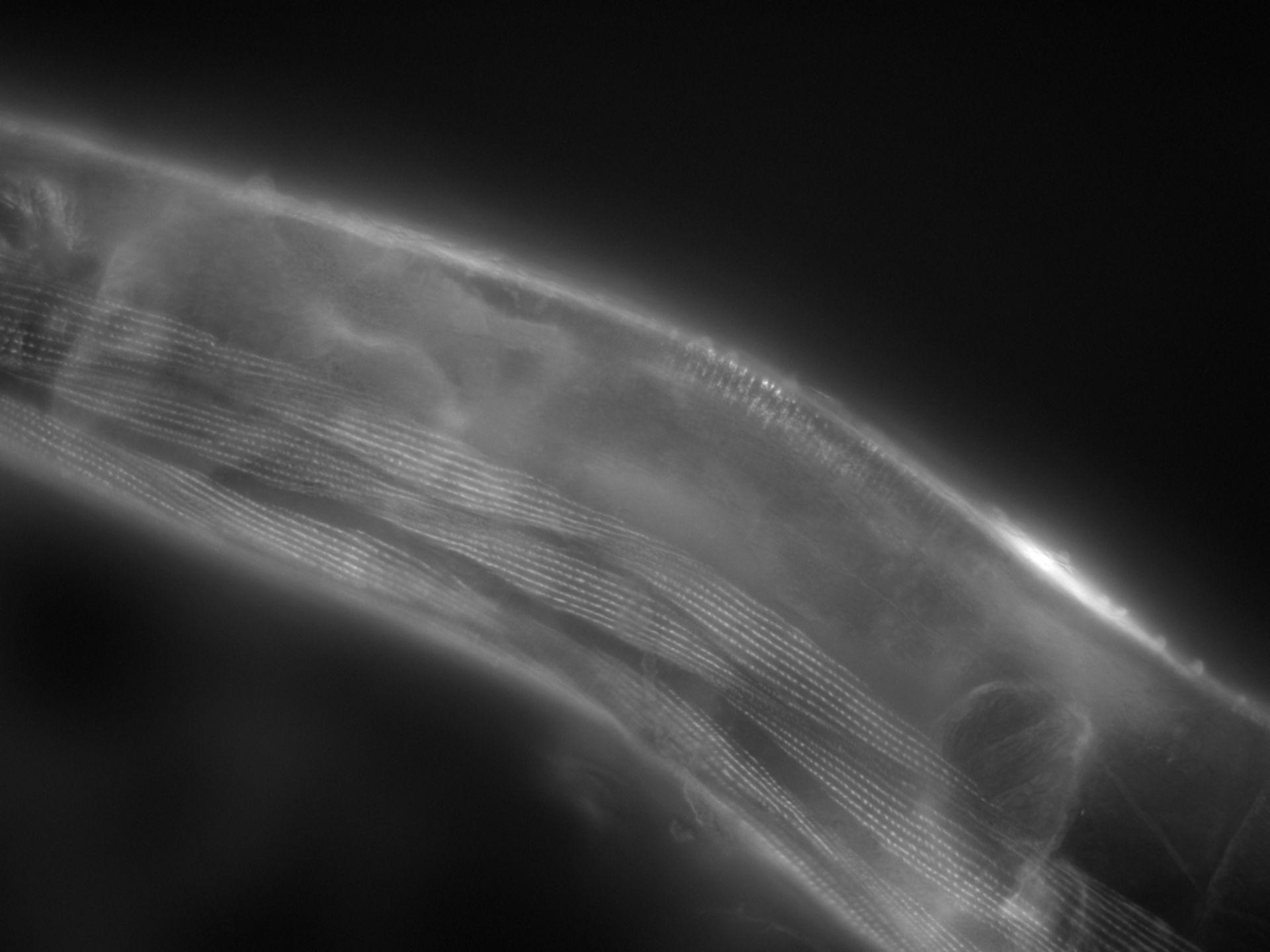 Caenorhabditis elegans (Actin filament) - CIL:1155