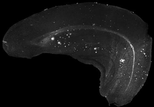 Ablagerungen des Amyloid-Beta-Proteins im Gehirn können markiert und mit einem Fluoreszenzmikroskop sichtbar gemacht werden. © Universitätsmedizin Mainz