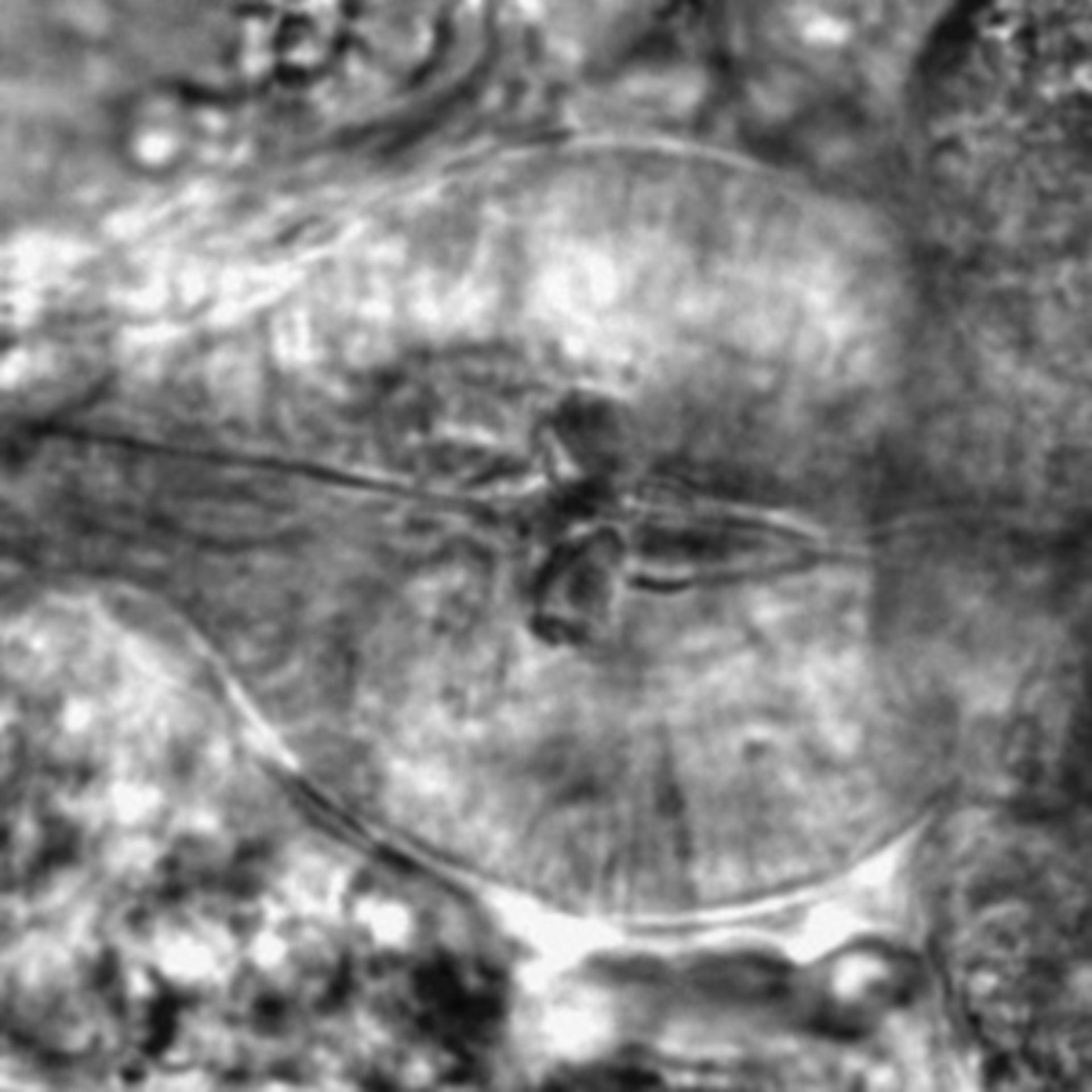 Caenorhabditis elegans - CIL:1740