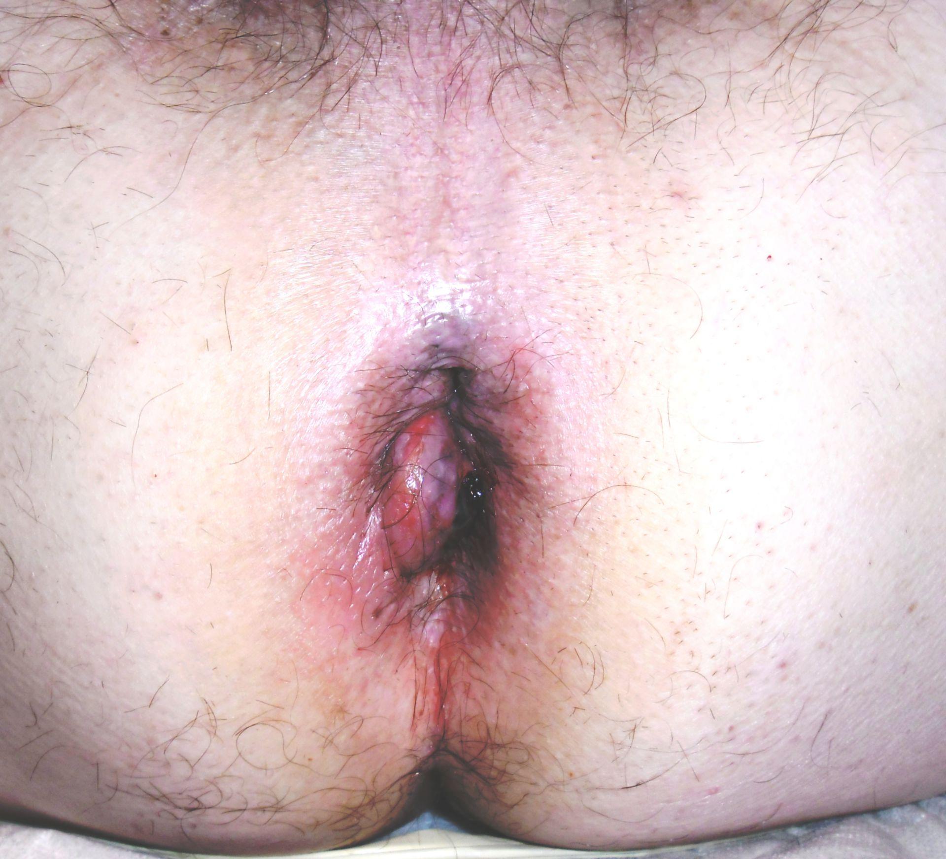 Hemorroides trombosadas