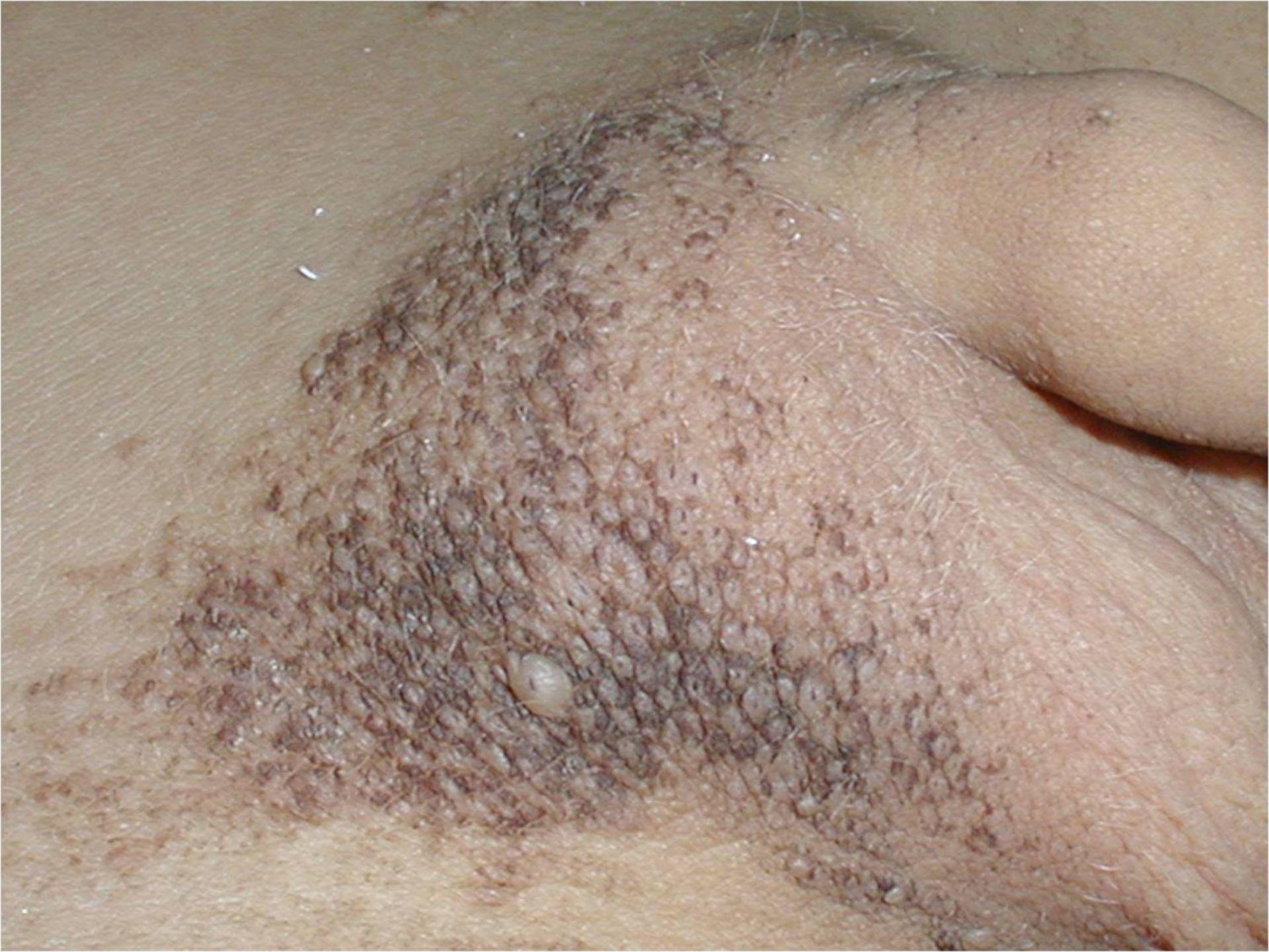 Adenoma sebaceum 1