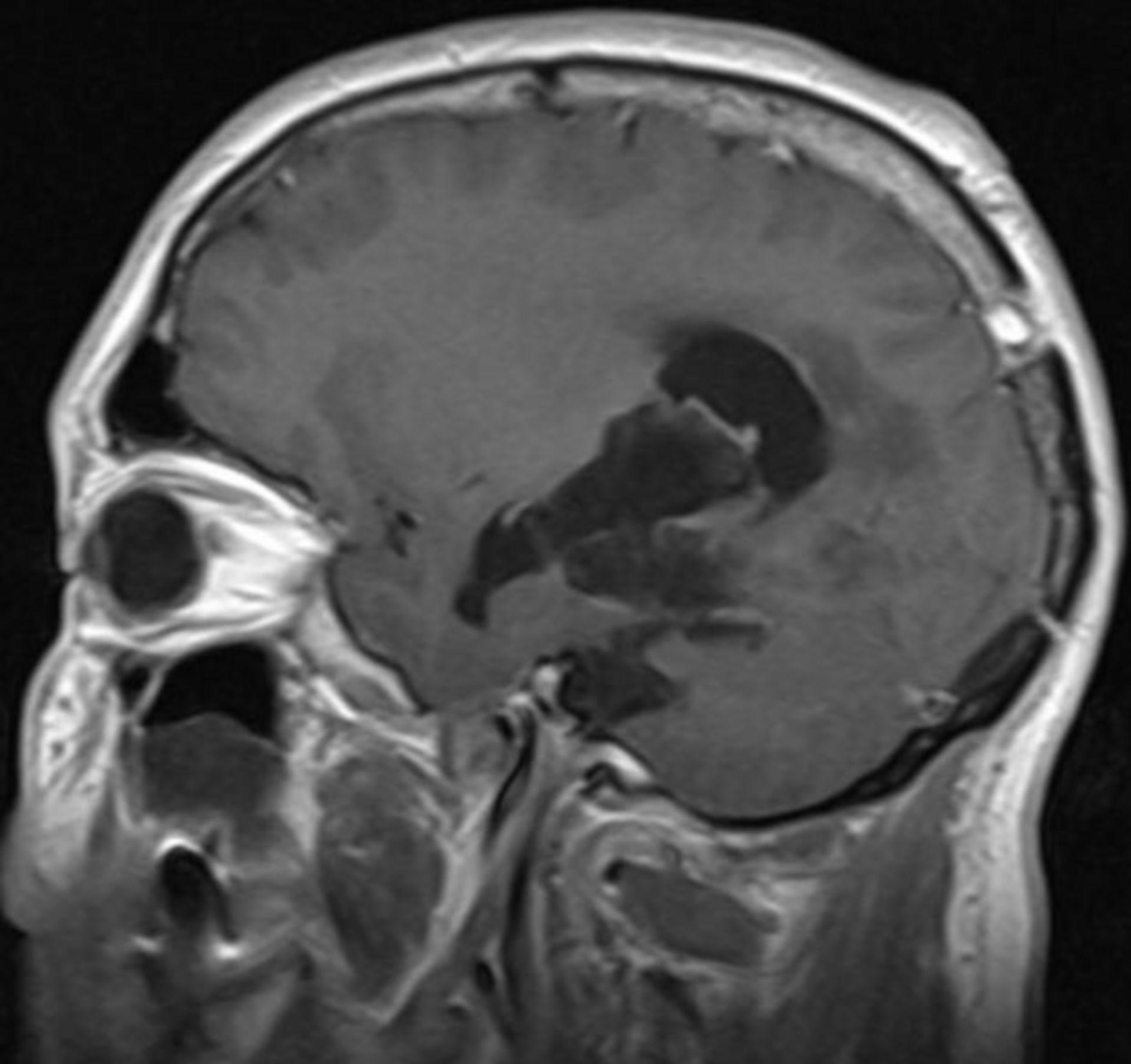 Quiste epidermoide supra-e infratentorial - cMRI sagital con medio de contraste