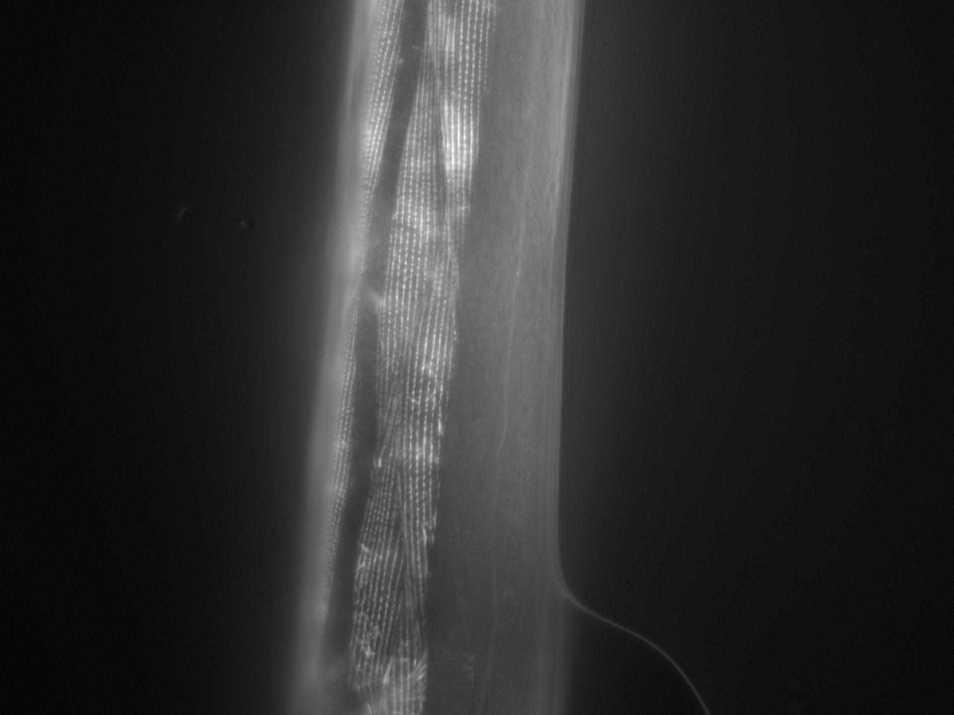 Caenorhabditis elegans (Actin filament) - CIL:1026