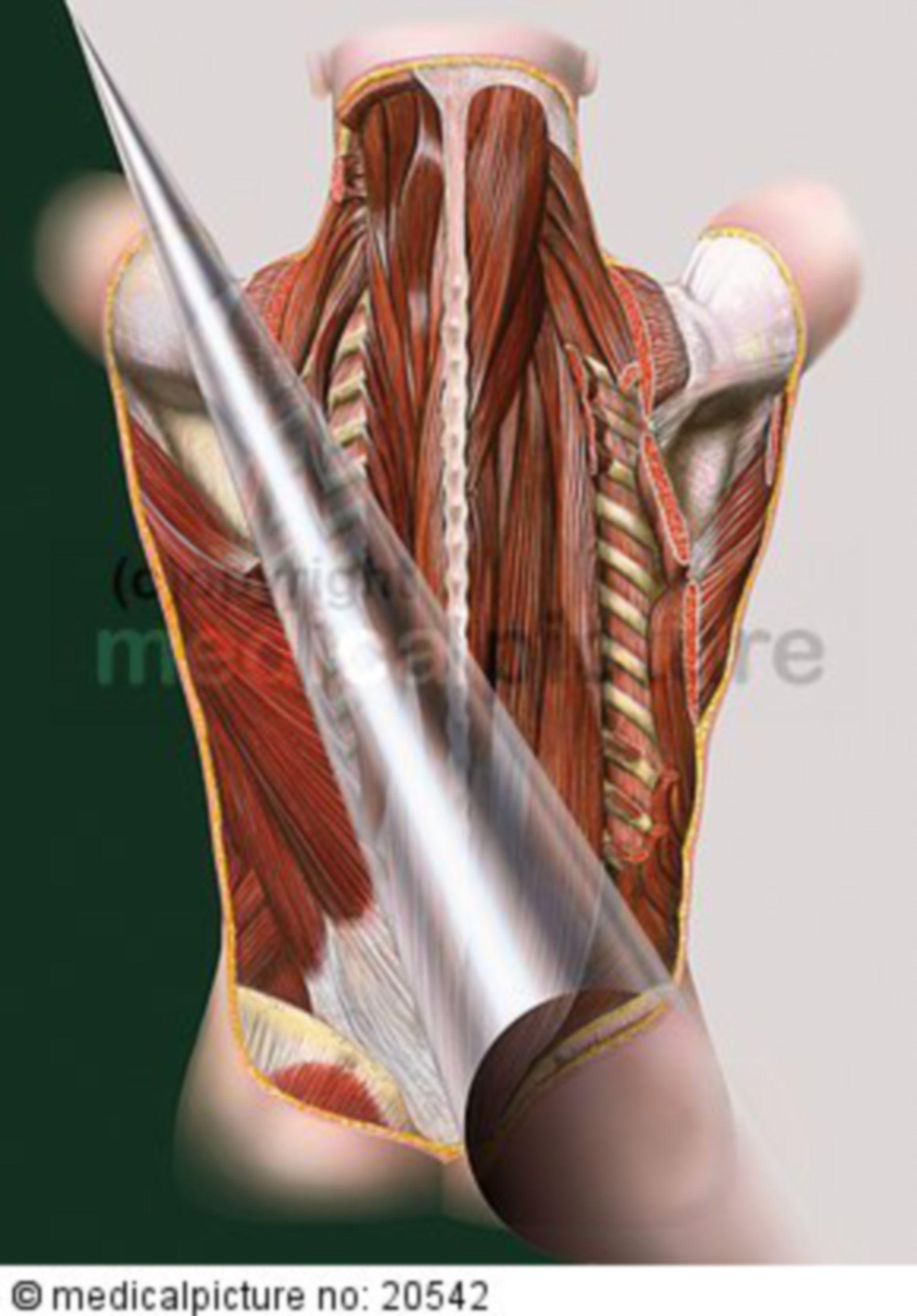 Rückenmuskeln (Mm. dorsi)