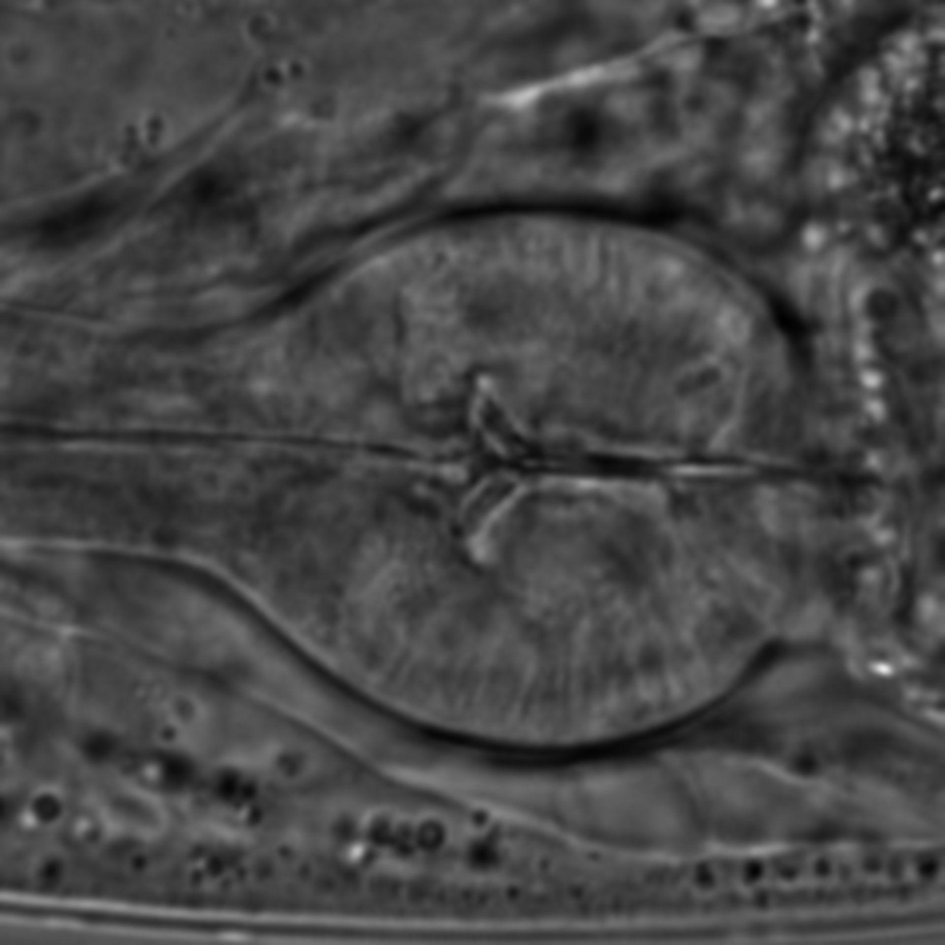 Caenorhabditis elegans - CIL:1589