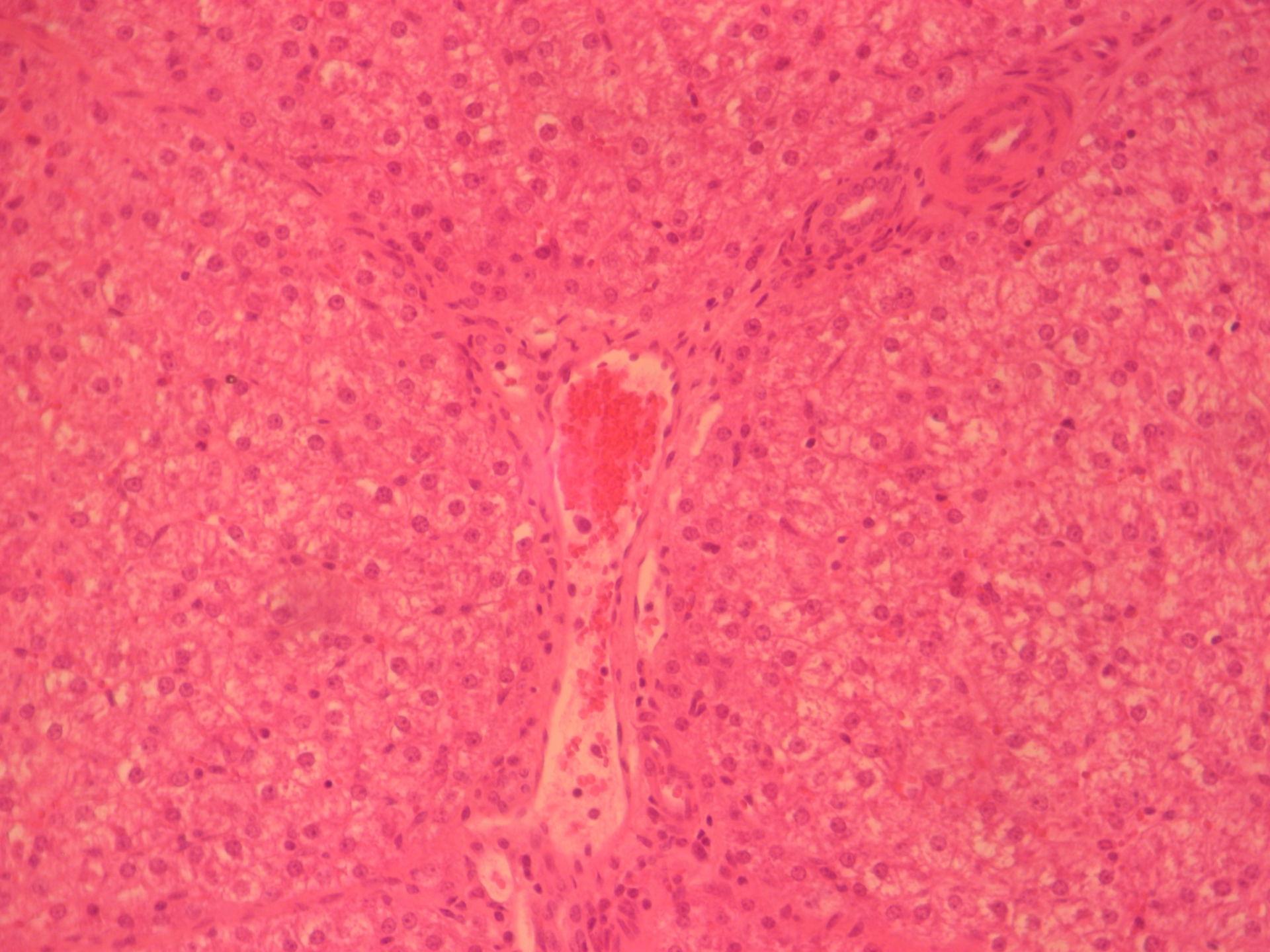 Liver of pig- liver triad