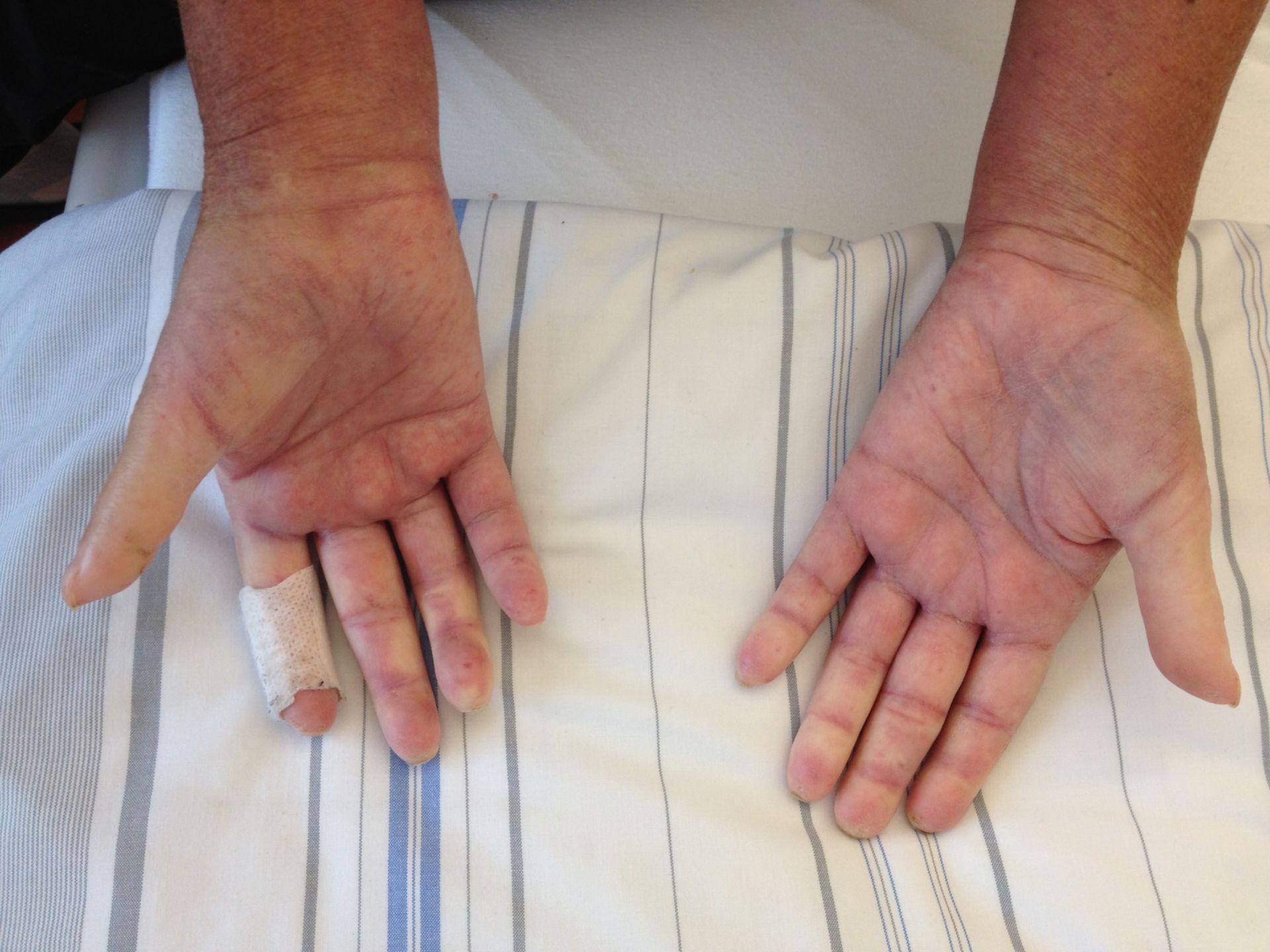 Esclerodactilia y síndrome de Raynaud en un paciente con síndrome de CREST (2/2)