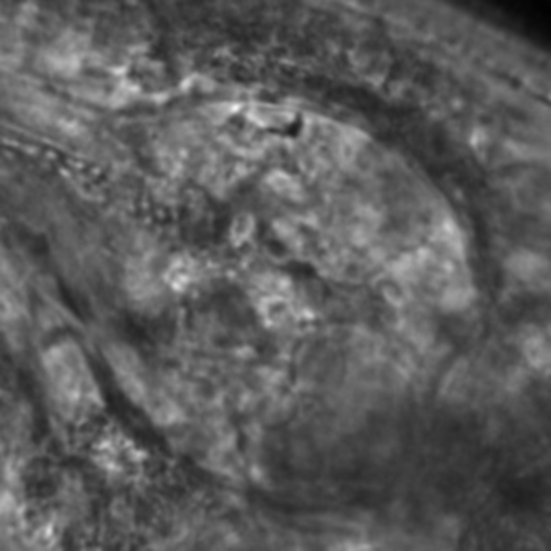 Caenorhabditis elegans - CIL:2759