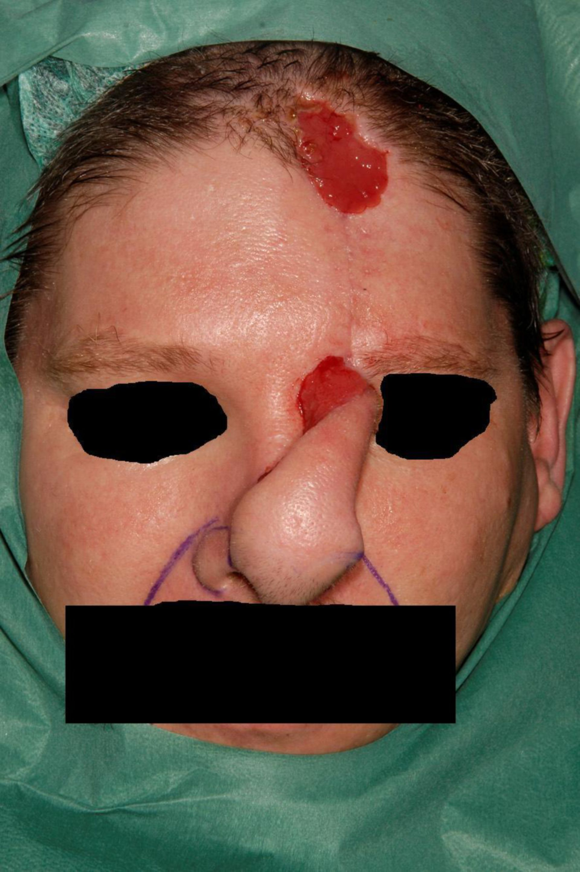 Nasal reconstruction using a paramedian forehead flap (5)