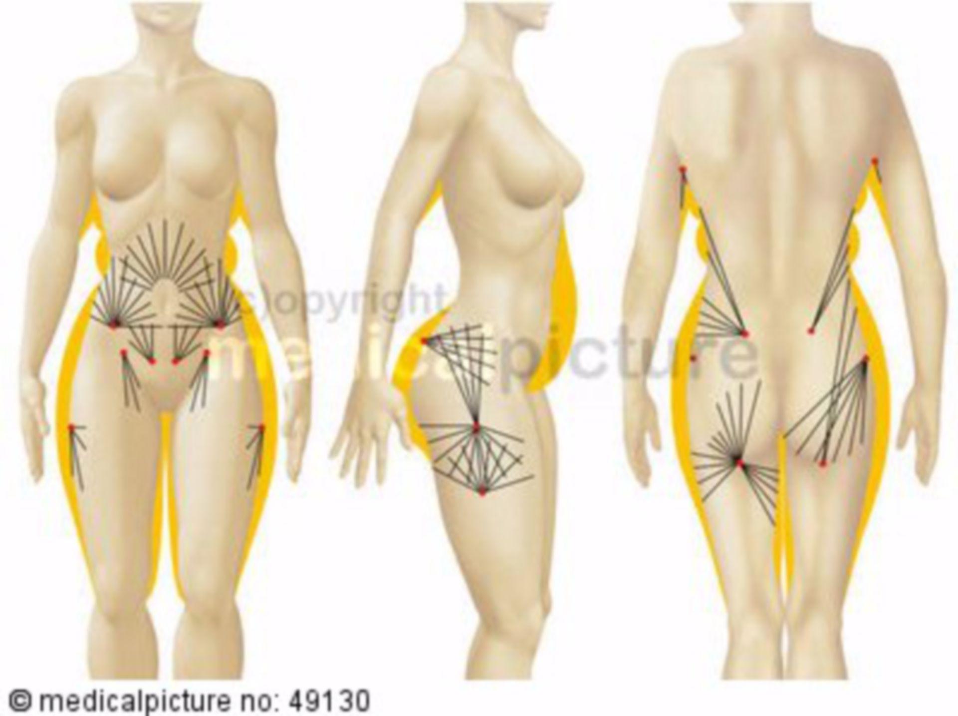 Areale zur Fettabsaugung