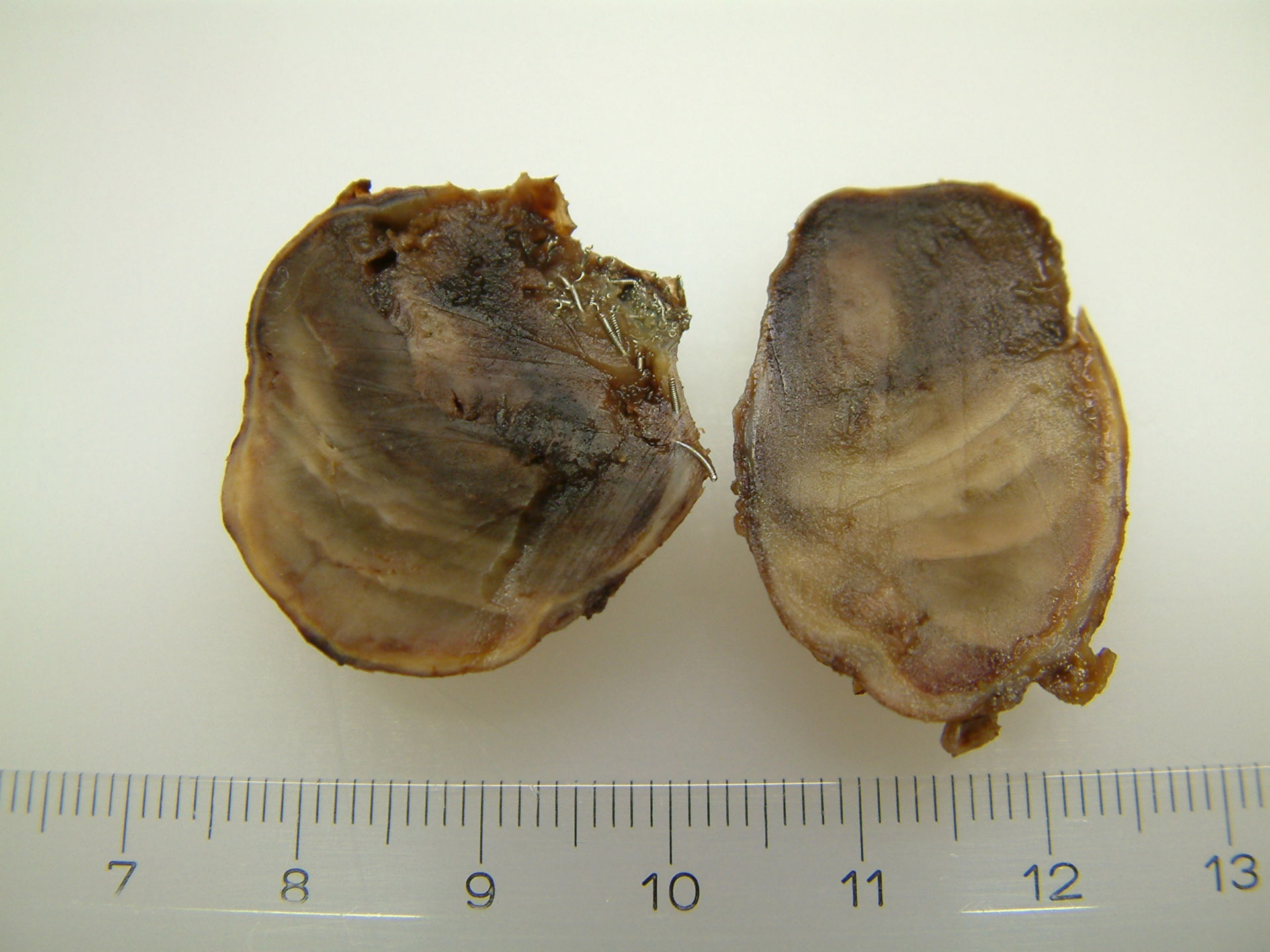 gecoiltes Riesenaneurysma - makroskopisch