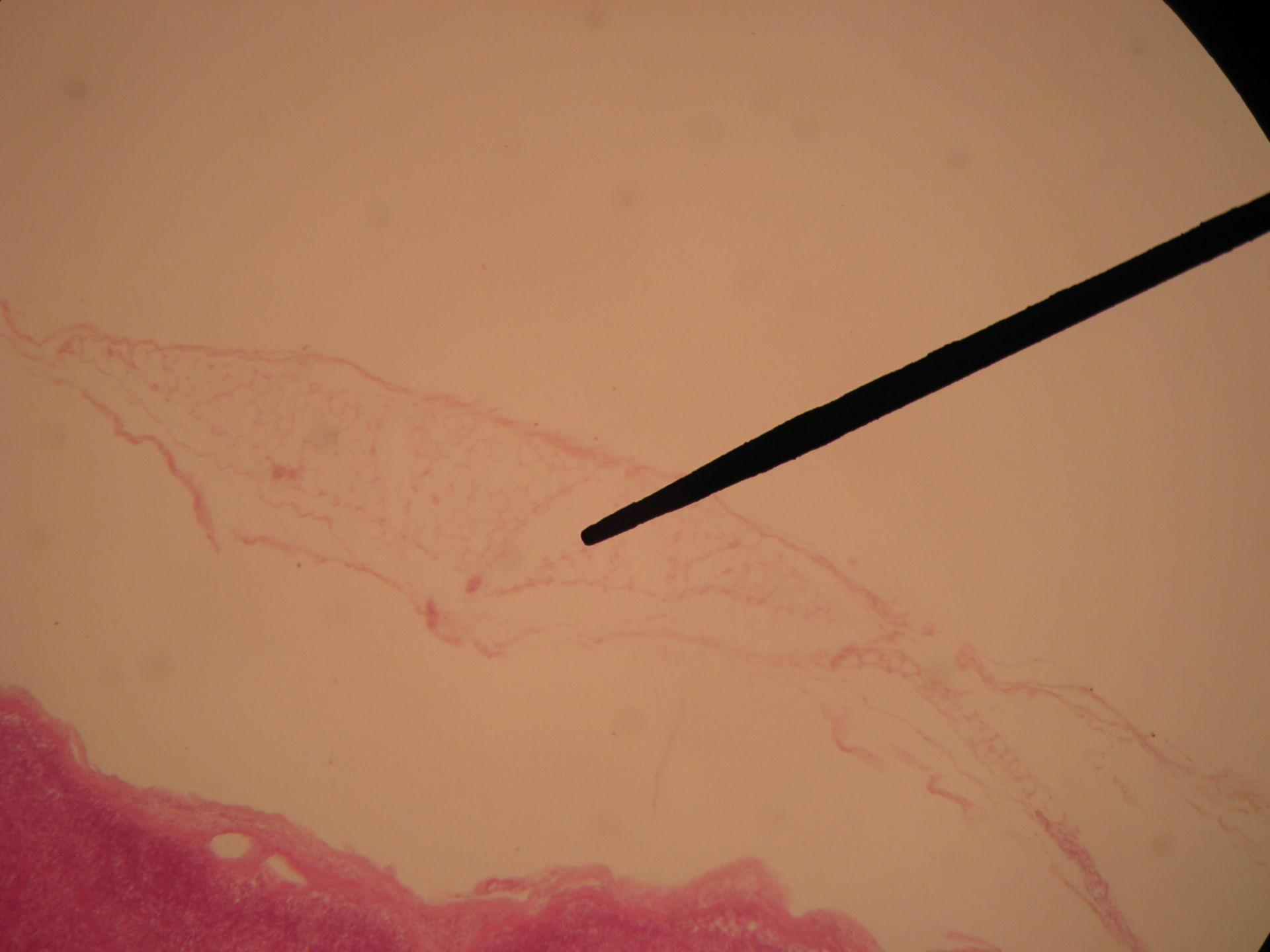 Bovine Lymph Node (4)- Fatty Tissue on the Capsule