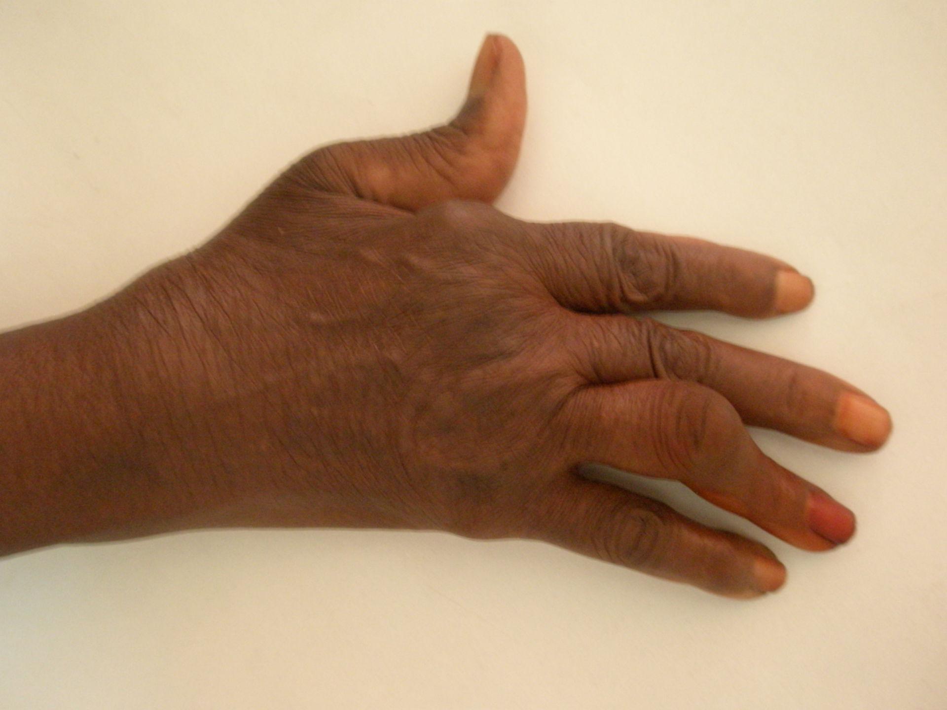 Rheumatoide Arthritis (5)
