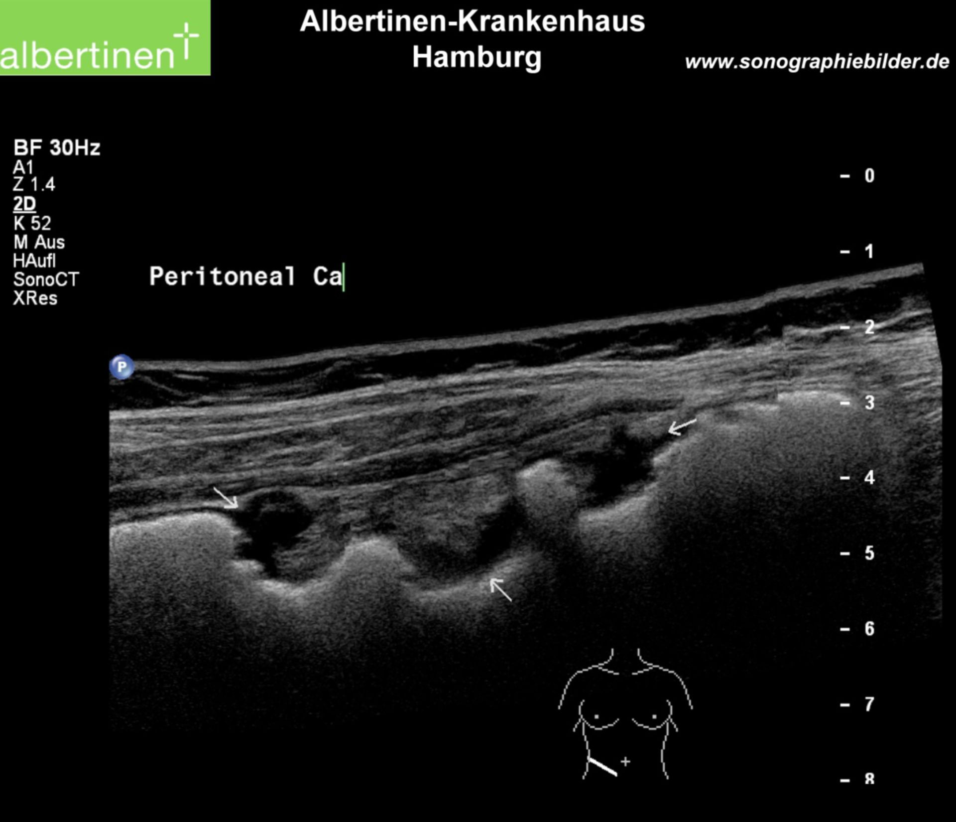 Peritoneal carcinomatosis, ultrasound