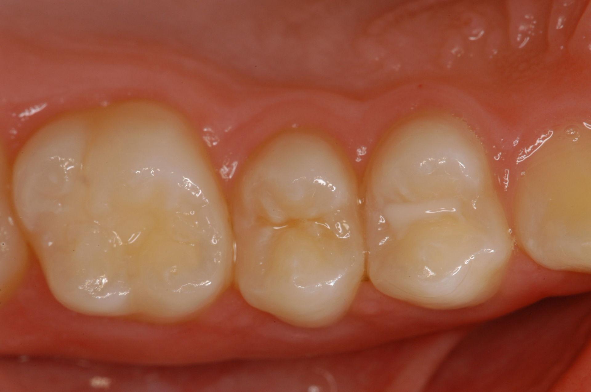Caries-free teeth maxillary premolar and first molar