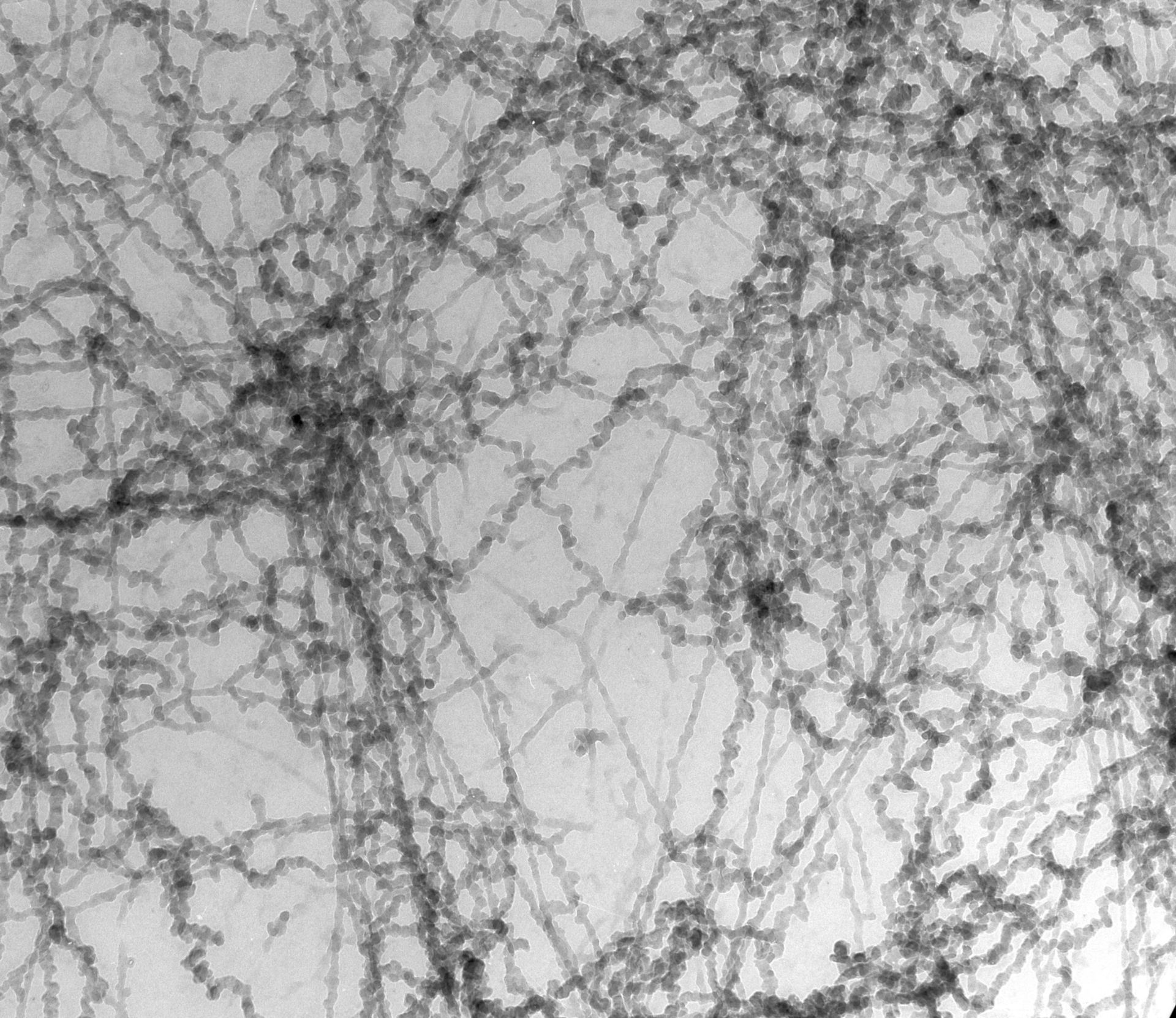Notopthalmus viridescence (Nuclear chromatin) - CIL:10087