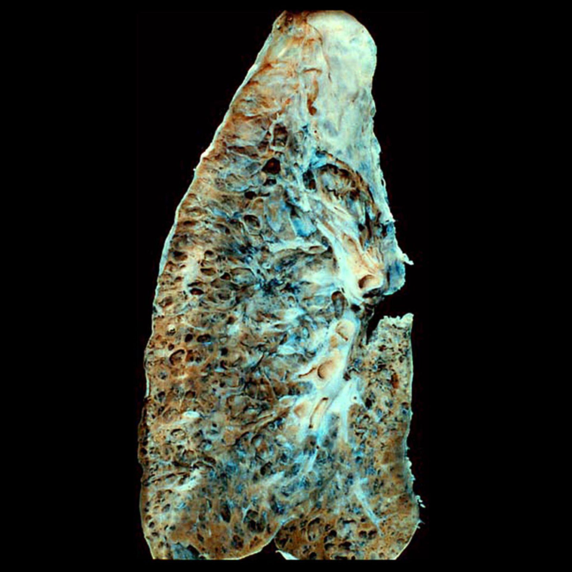 Honigwabenlunge (Lungen-Fibrose im Endstadium, Autopsie-Präparat)