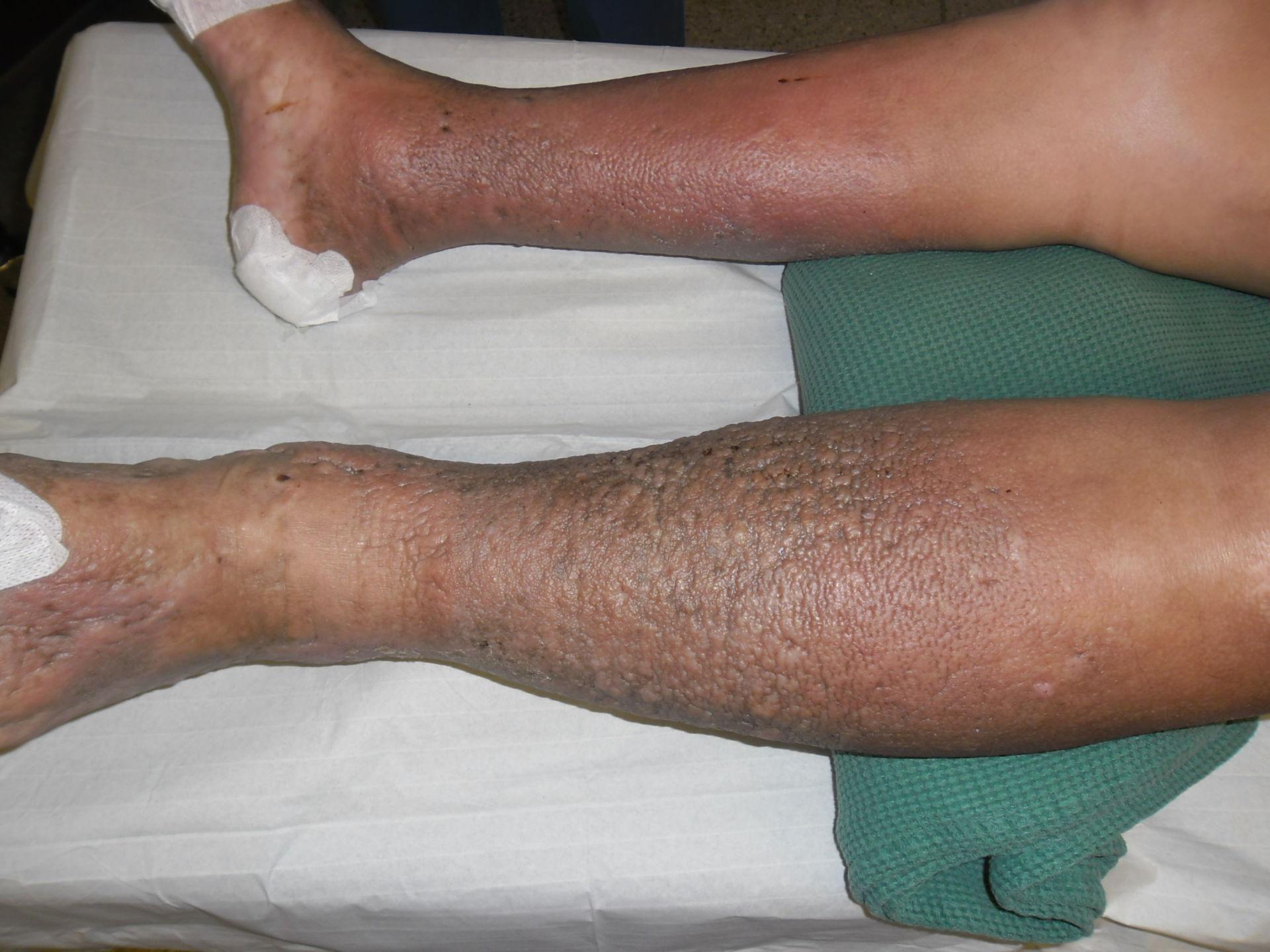 Dermatitis estática en las piernas