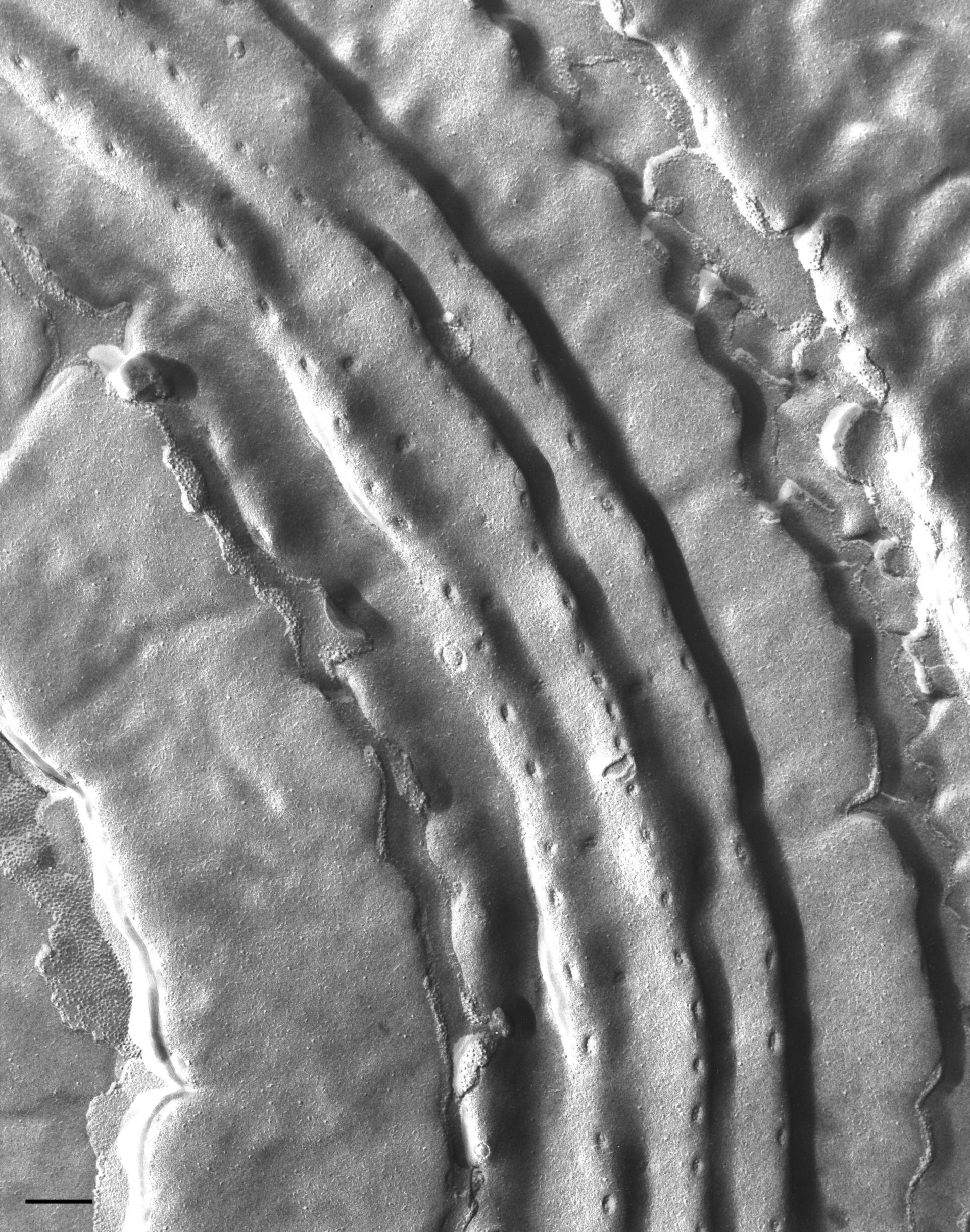 Vorticella microstoma (Pellicole) - CIL:36288