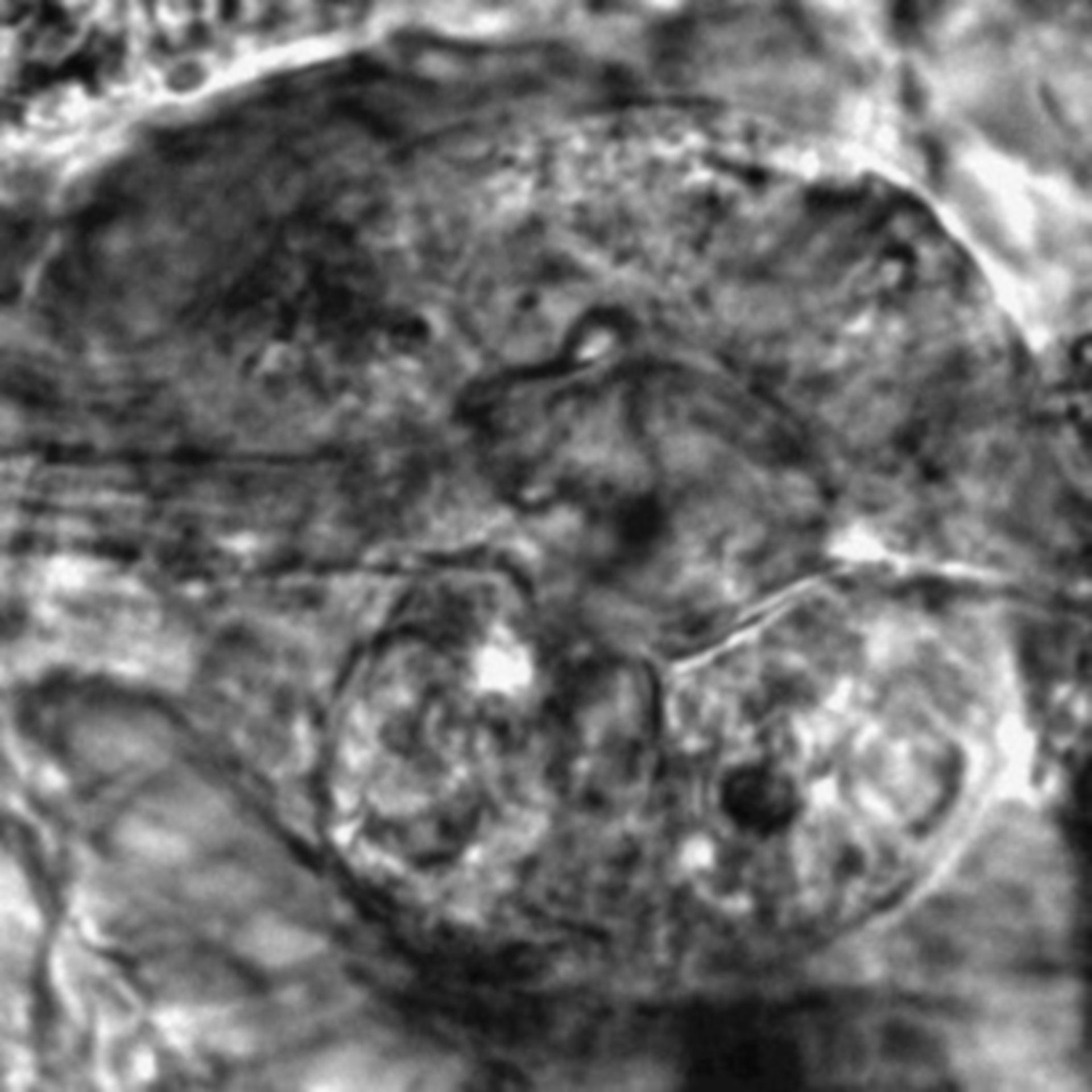 Caenorhabditis elegans - CIL:2606