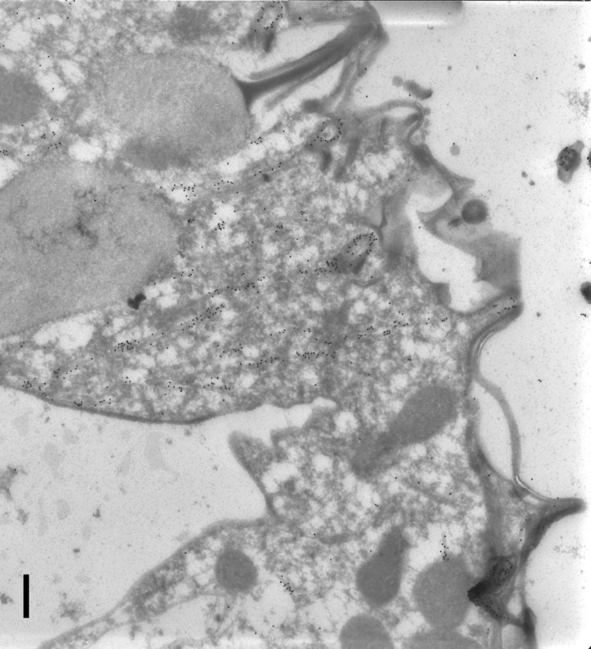 Paramecium tetraurelia (Cytoproct) - CIL:9850
