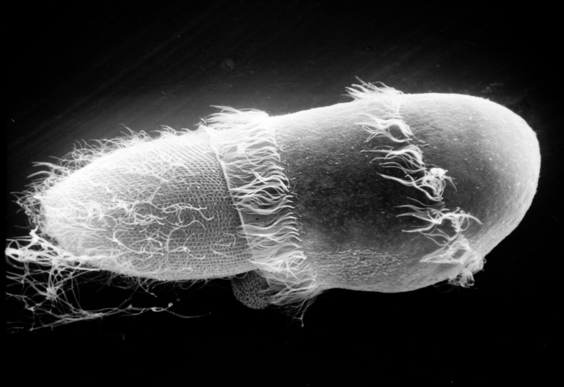Paramecium sp. (superficie cellulare) - CIL:21995
