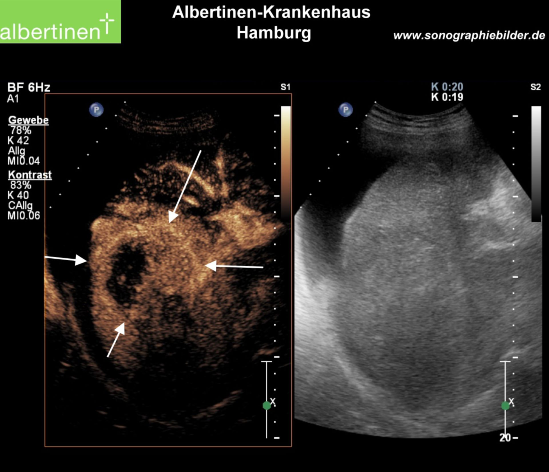 Metastasis liver contrast ultrasound arrows