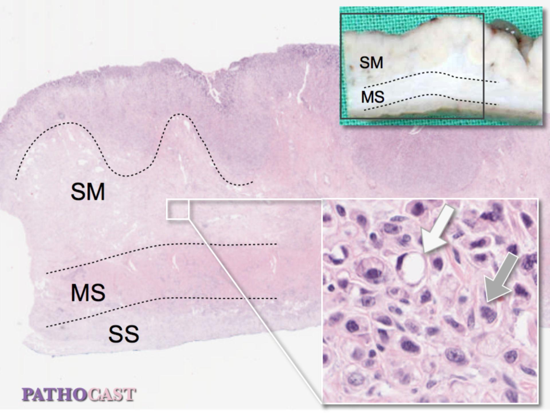 Gastric Carcinoma, Diffuse Type (Lauren)