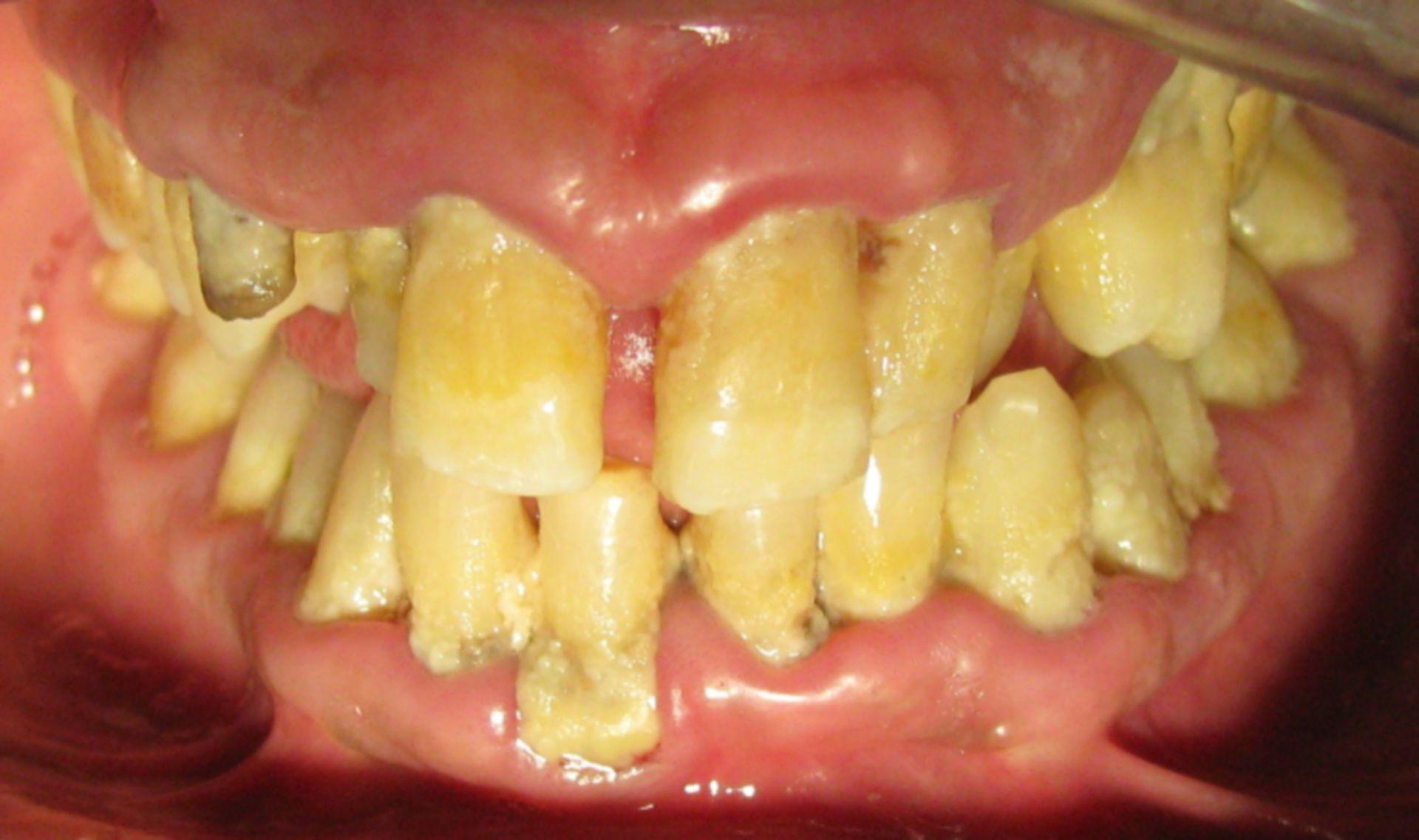 Moderne Plage: Mundhygiene 2013