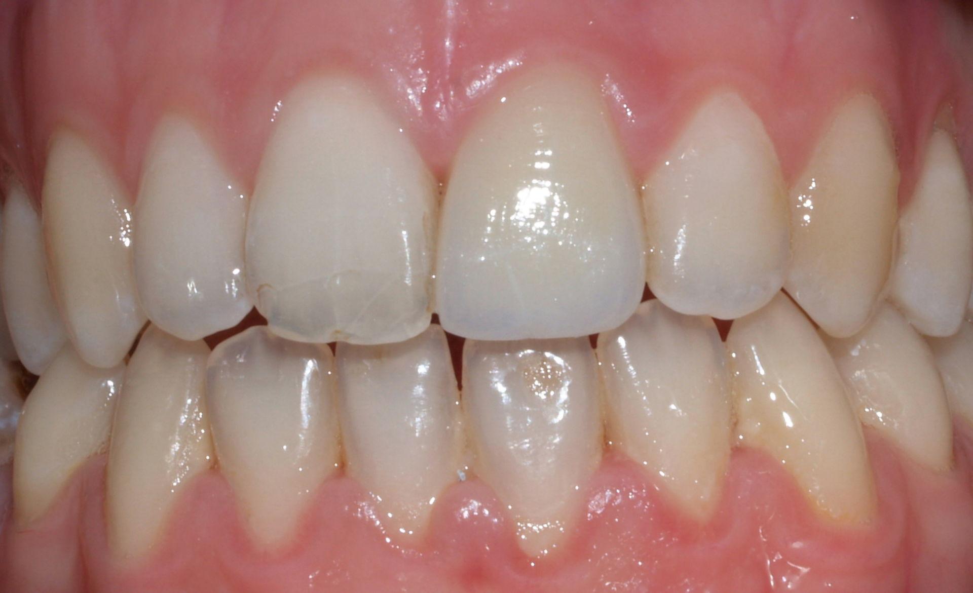 Zahnbleeching- Nachher