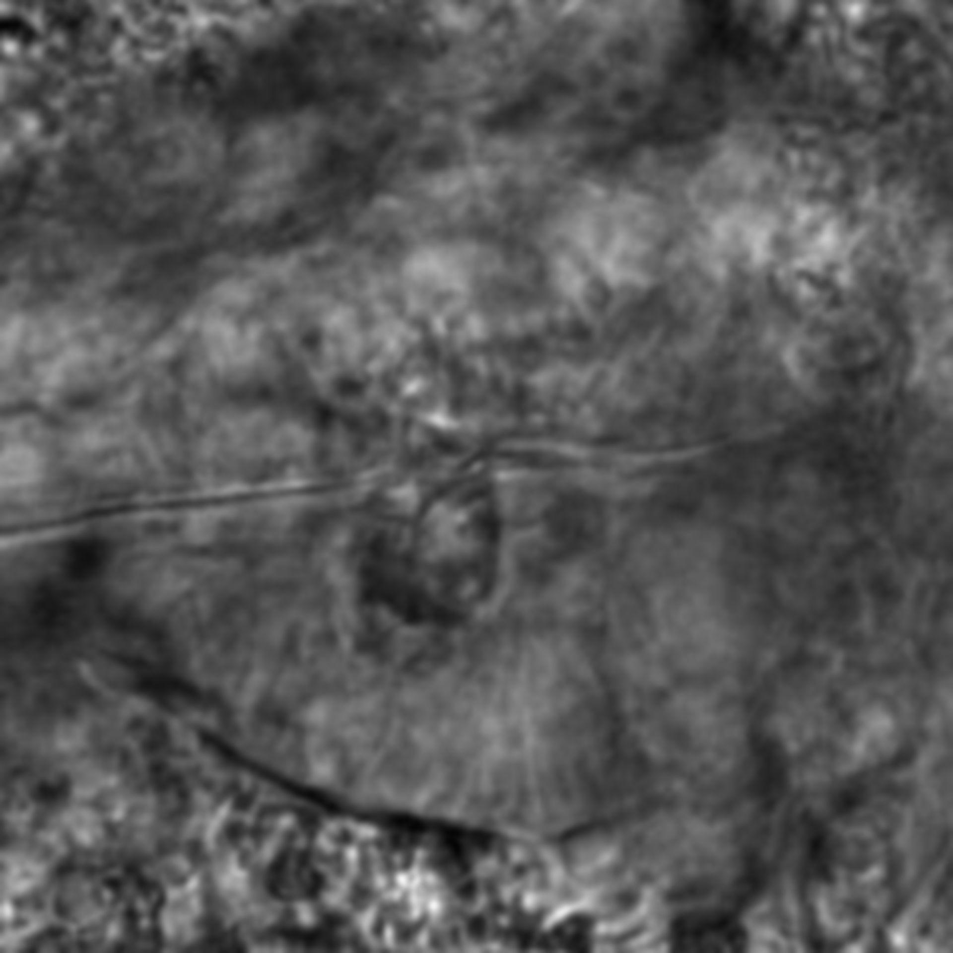 Caenorhabditis elegans - CIL:2136
