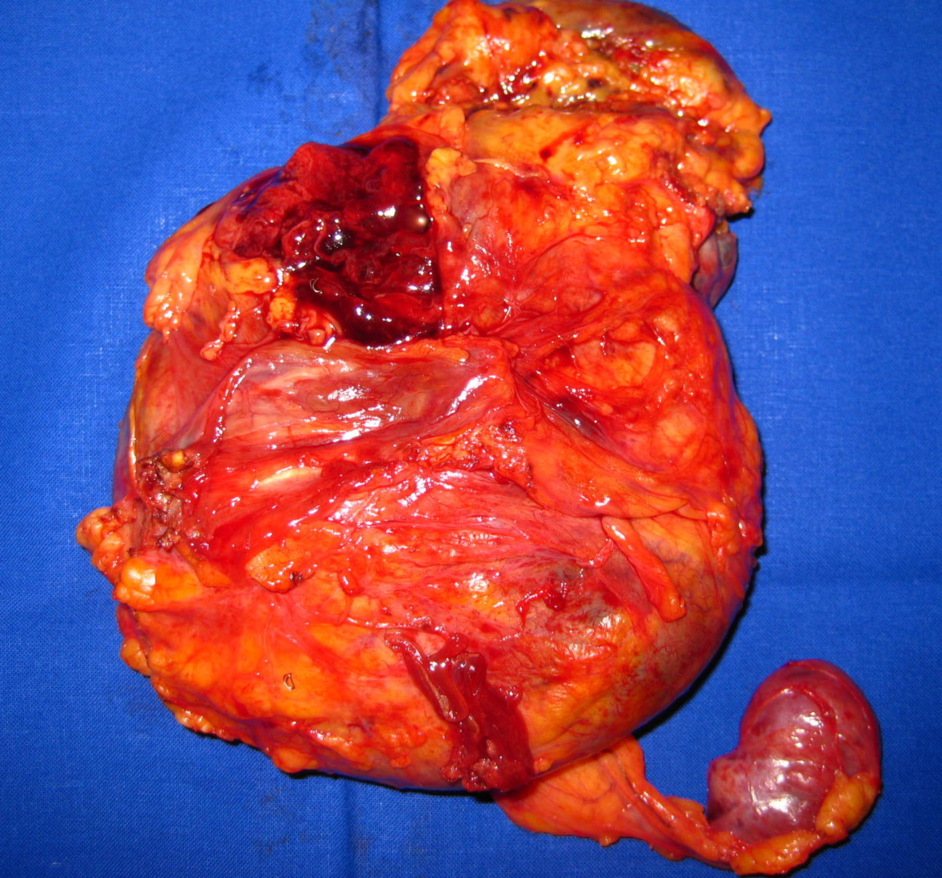 Leiomyosarkomrezidiv-Präparat