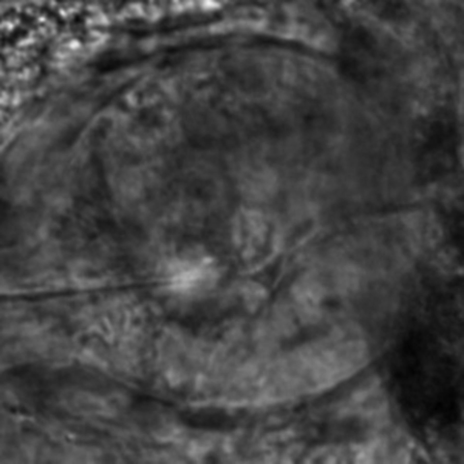 Caenorhabditis elegans - CIL:2640
