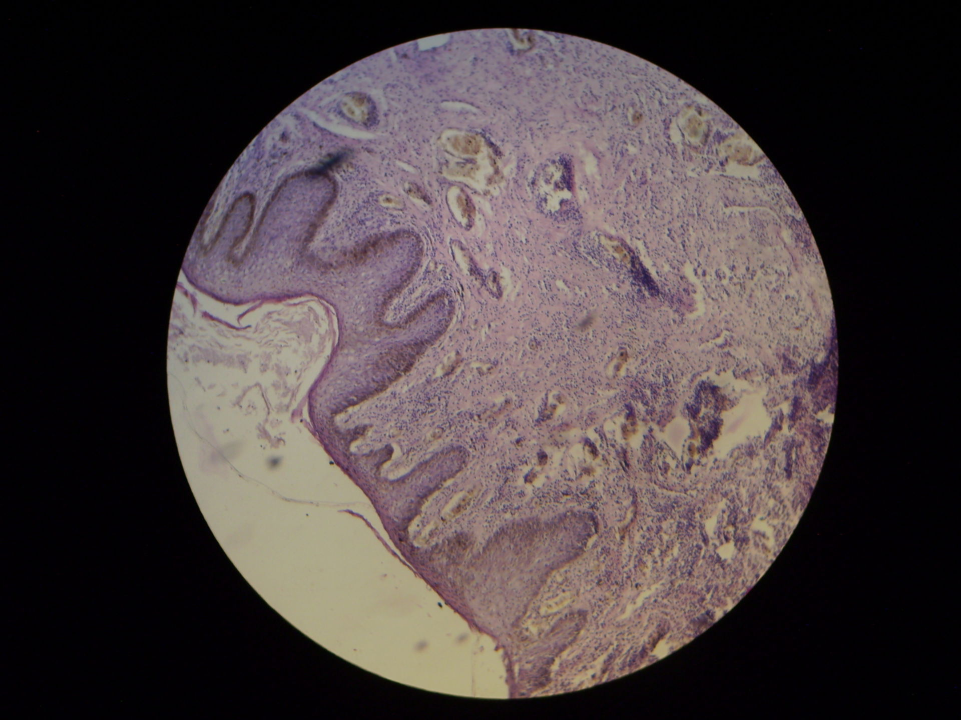Syphilitic primary chancre on the Glans penis