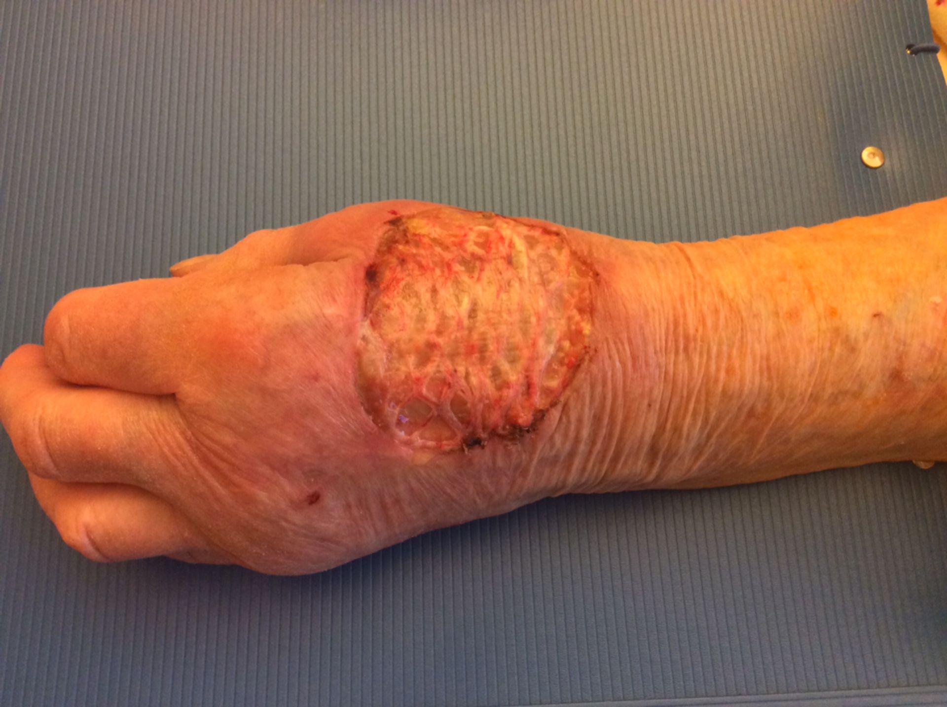Tumore della mano