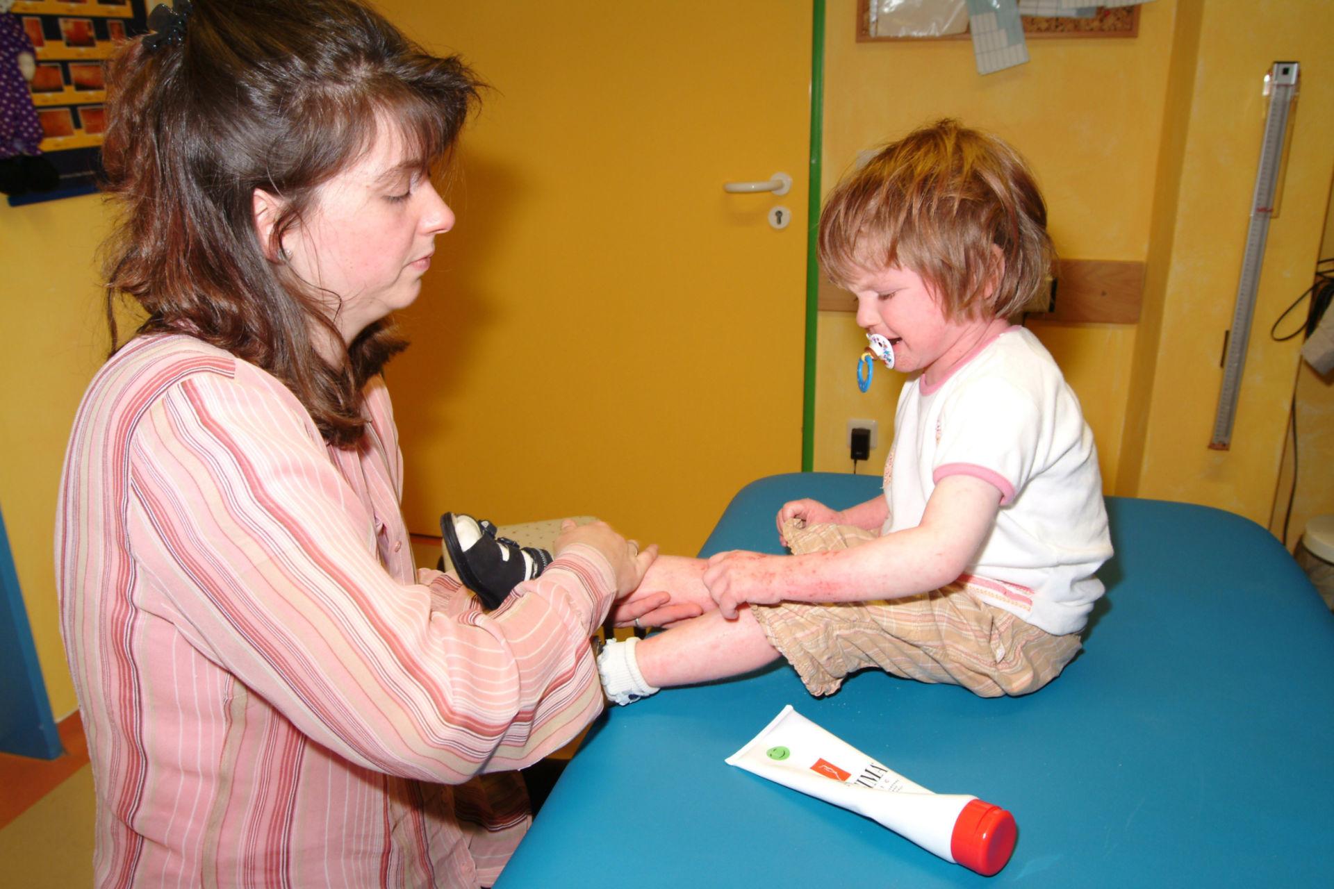 Neurodermitis Kind