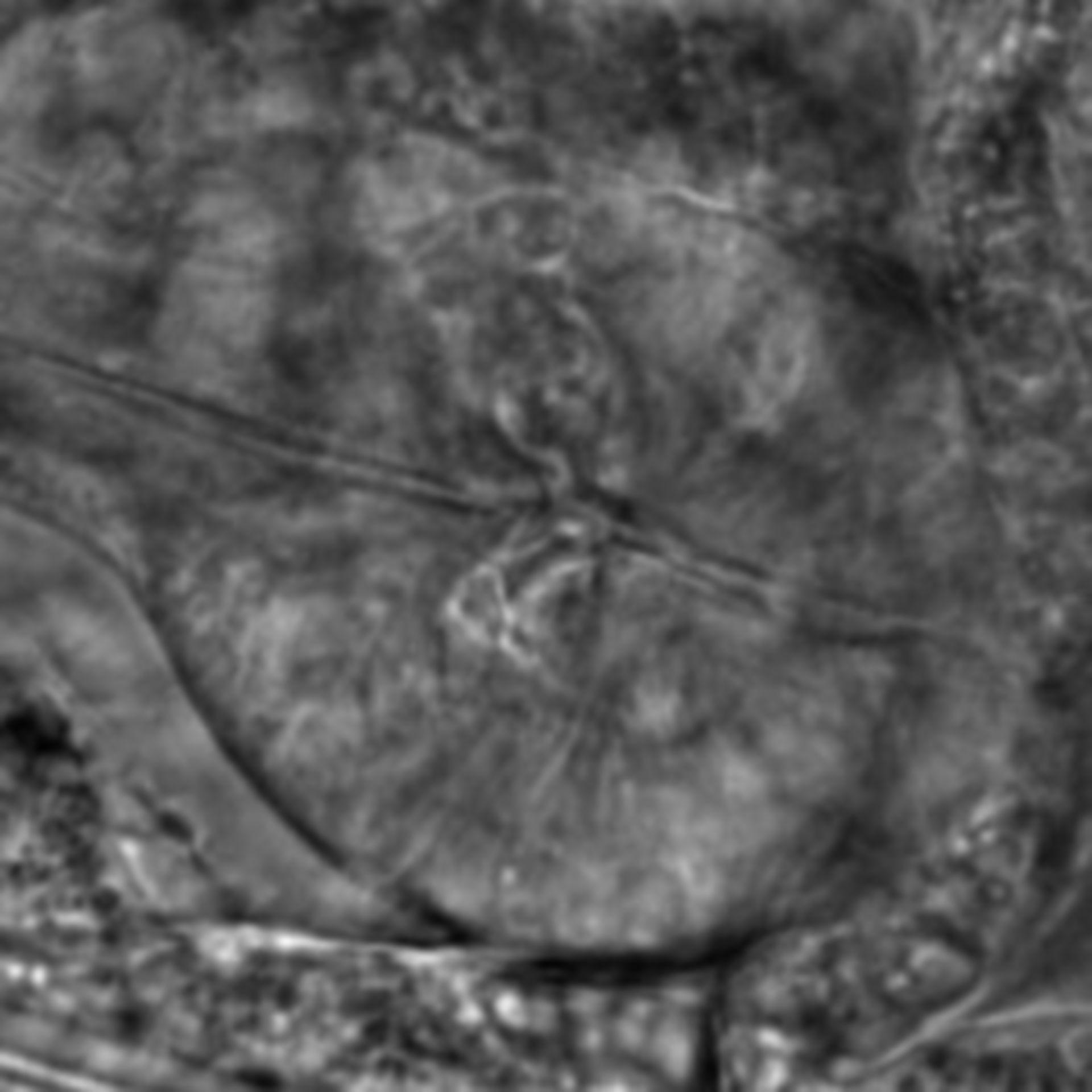 Caenorhabditis elegans - CIL:2161
