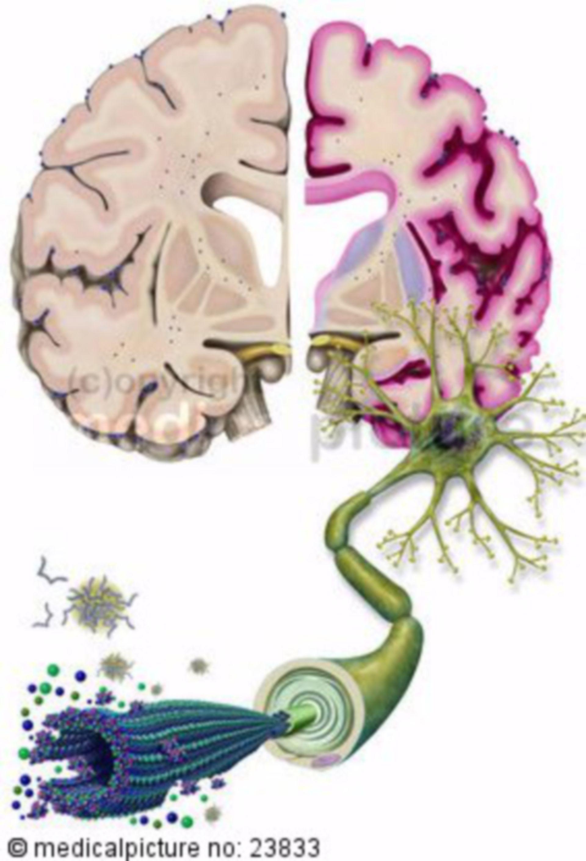 Alzheimer, Nervenzelle