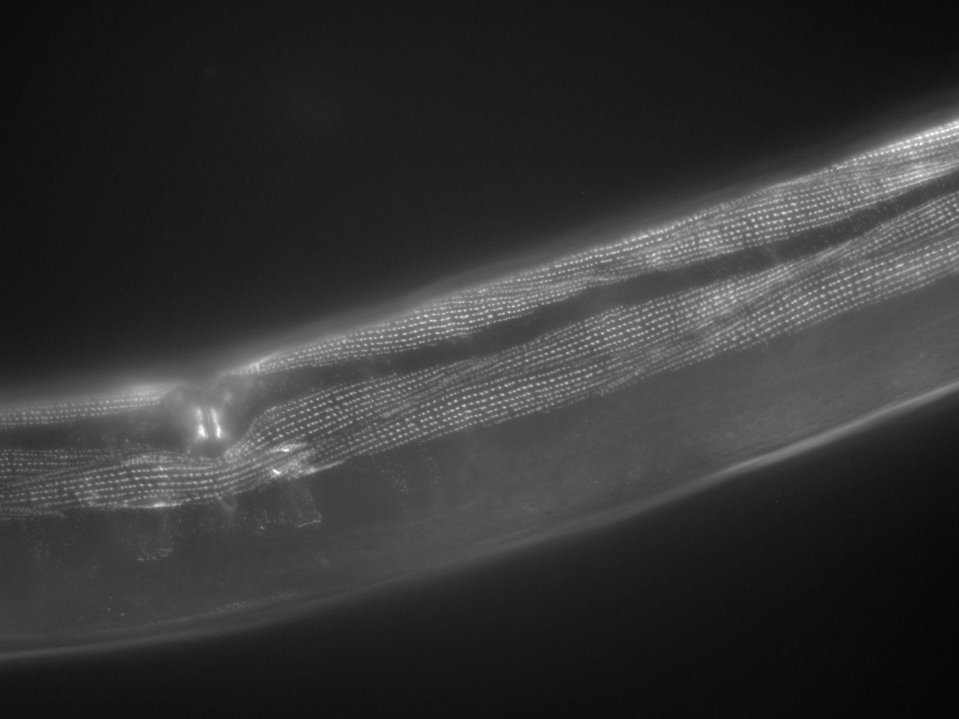 Caenorhabditis elegans (filamento di actina) - CIL:1052