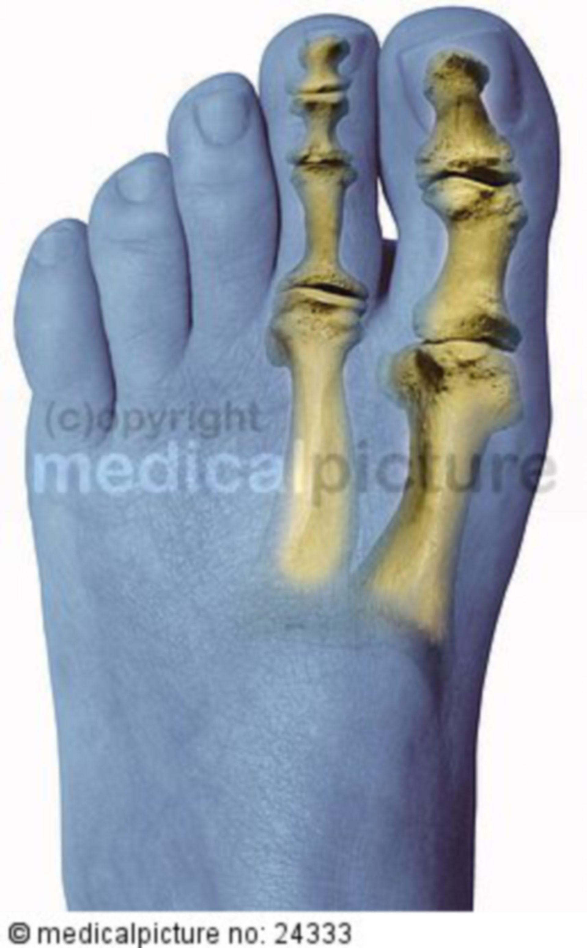 Normal foot skeleton
